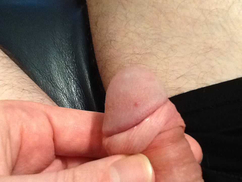 Friction burn from sex