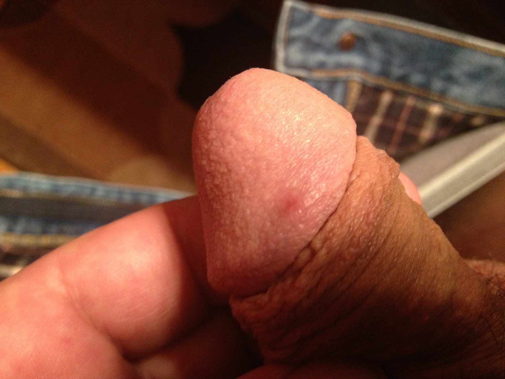 Small Red Bumps On Head Of Penis 96