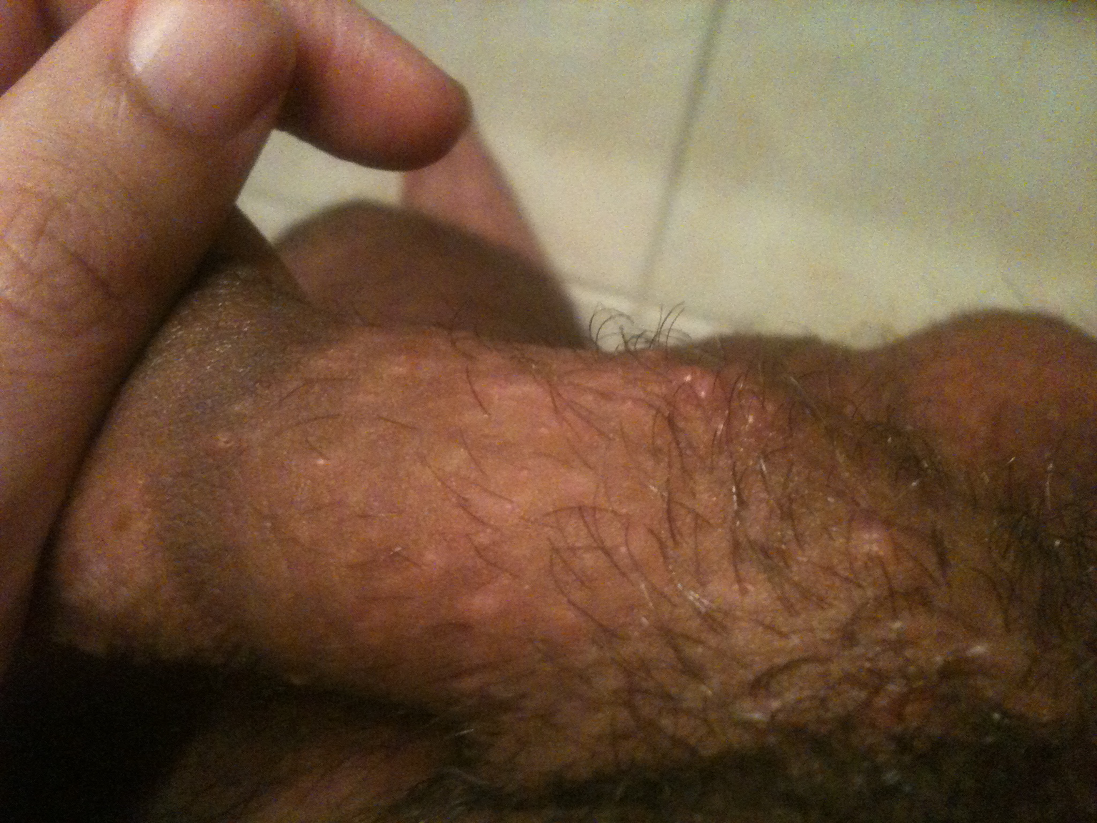 Shaved pubes red bumps