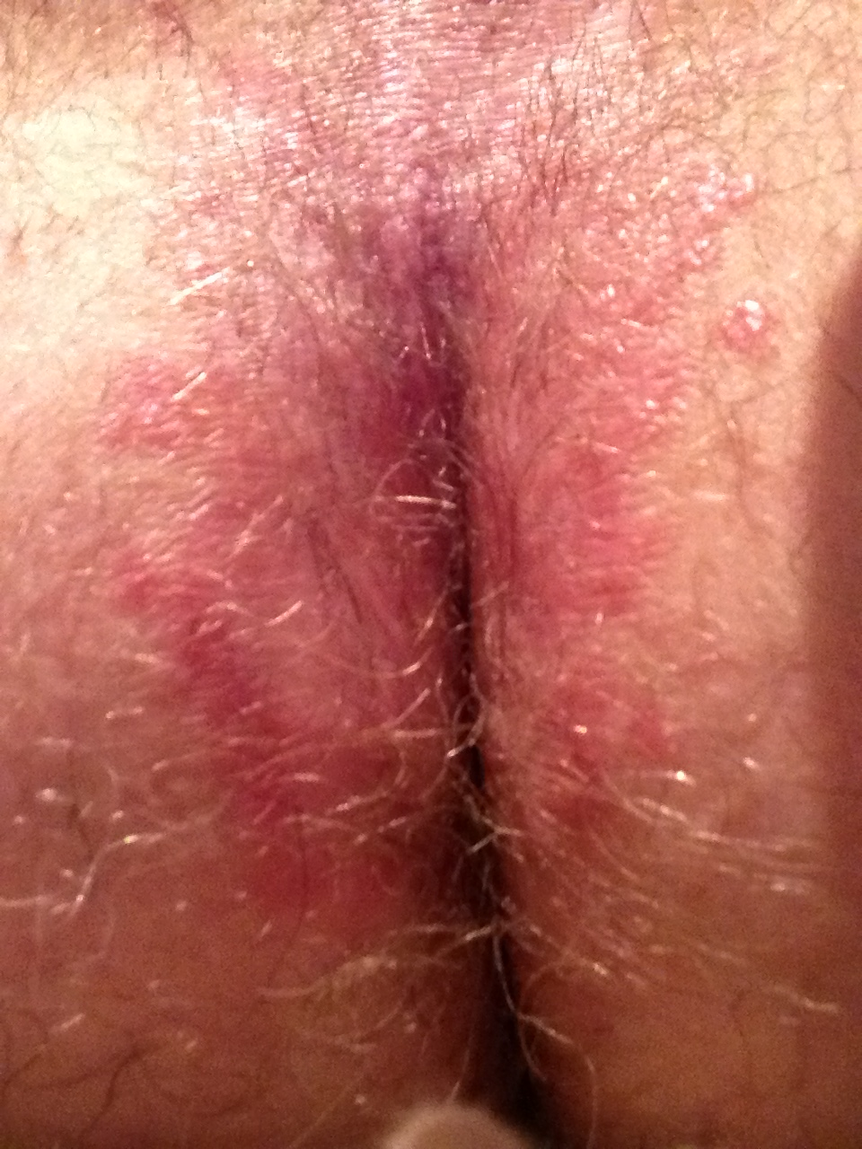itching after sex in grown area