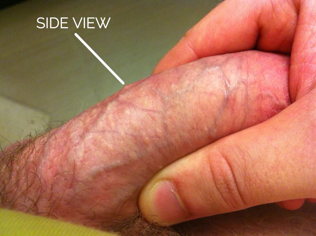 Ingrown Hair On Penis Shaft 82