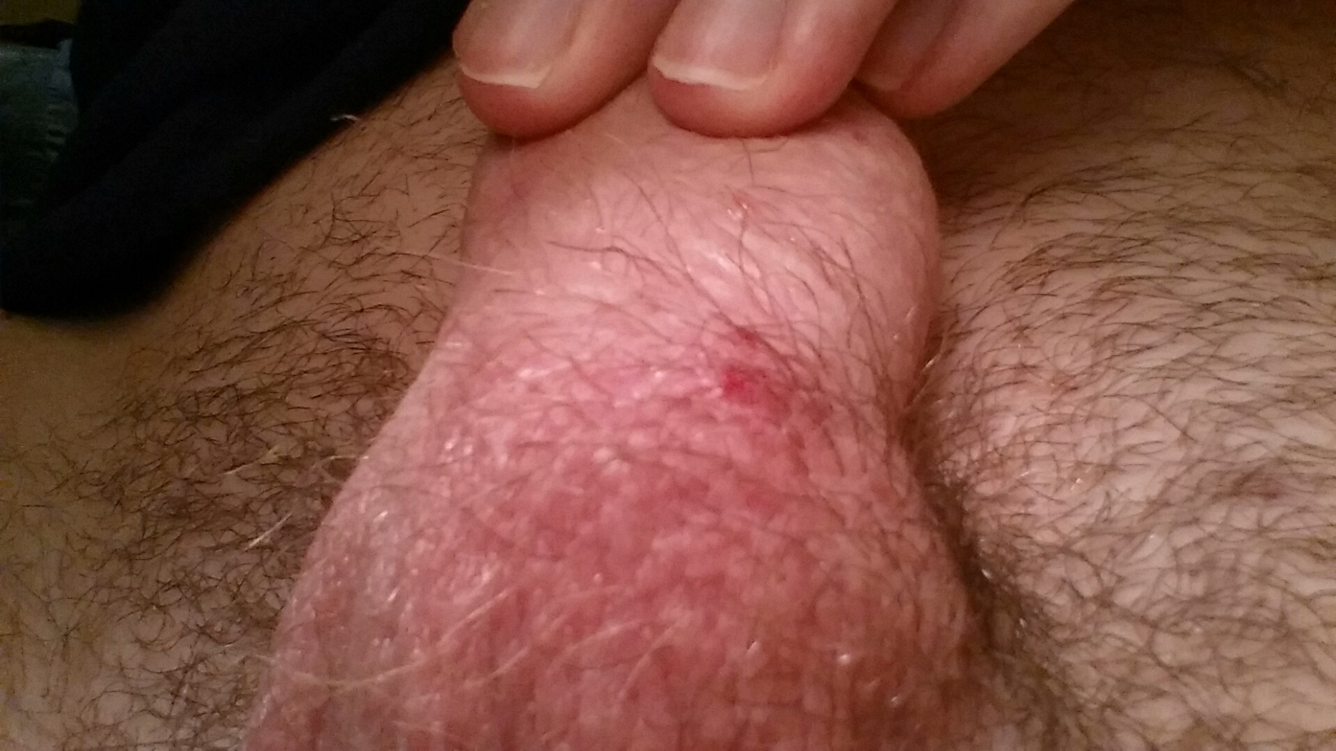 Bumps At The Base Of Penis 71