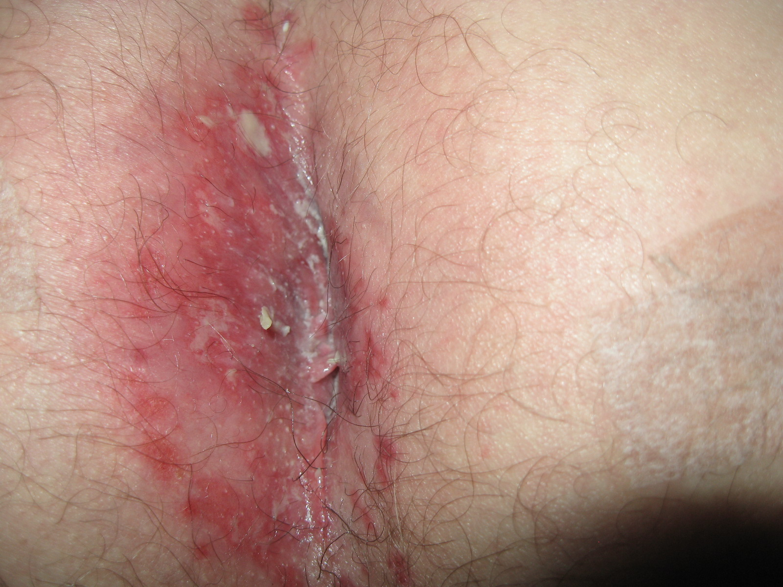 Yeast Infection Skin Rash Pictures, Symptoms, Treatment Causes