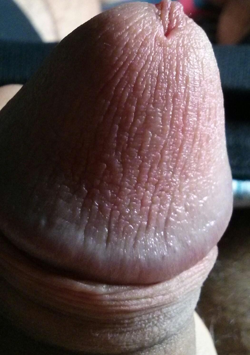 Normal Penis Gallery 93