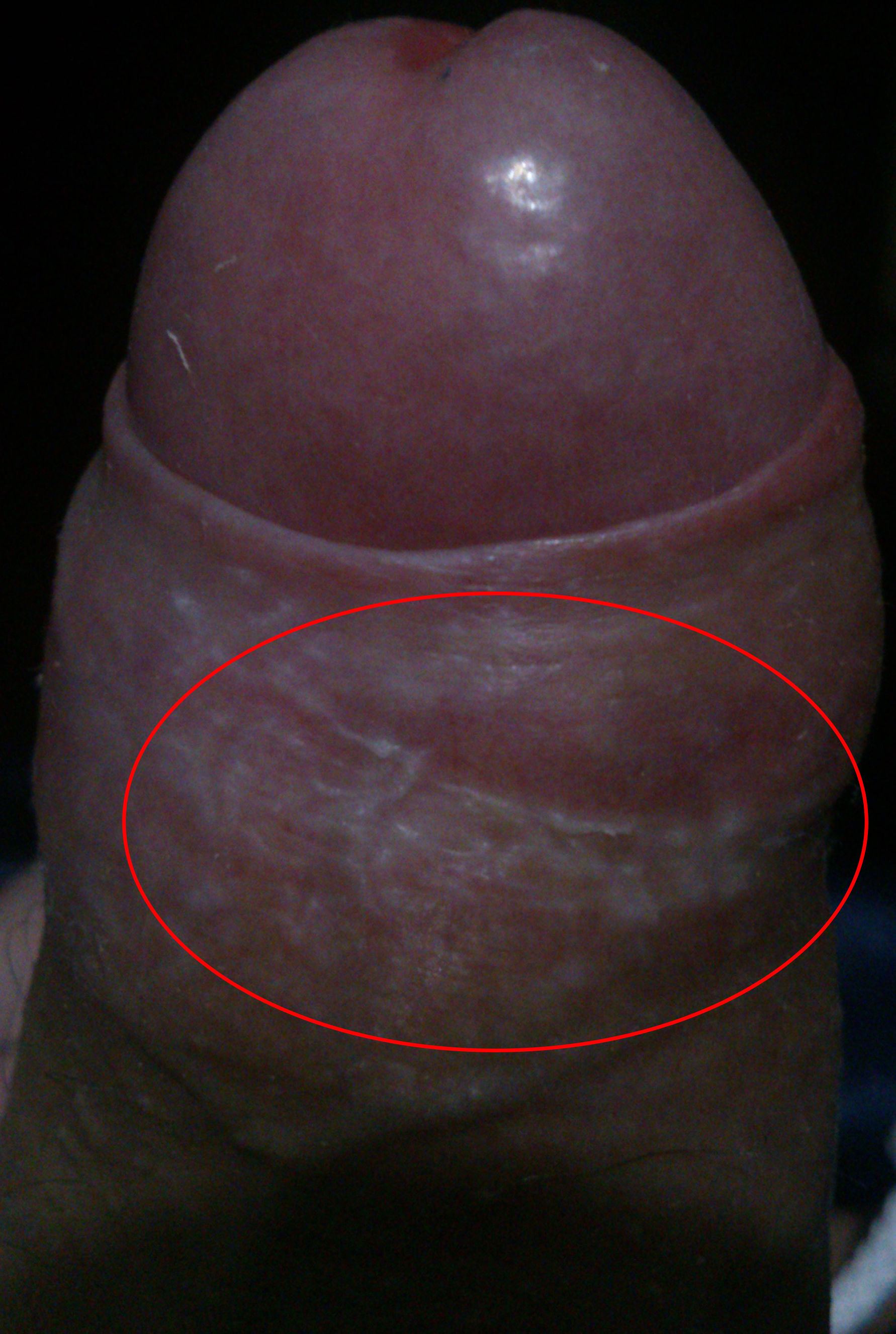 white spots on foreskin