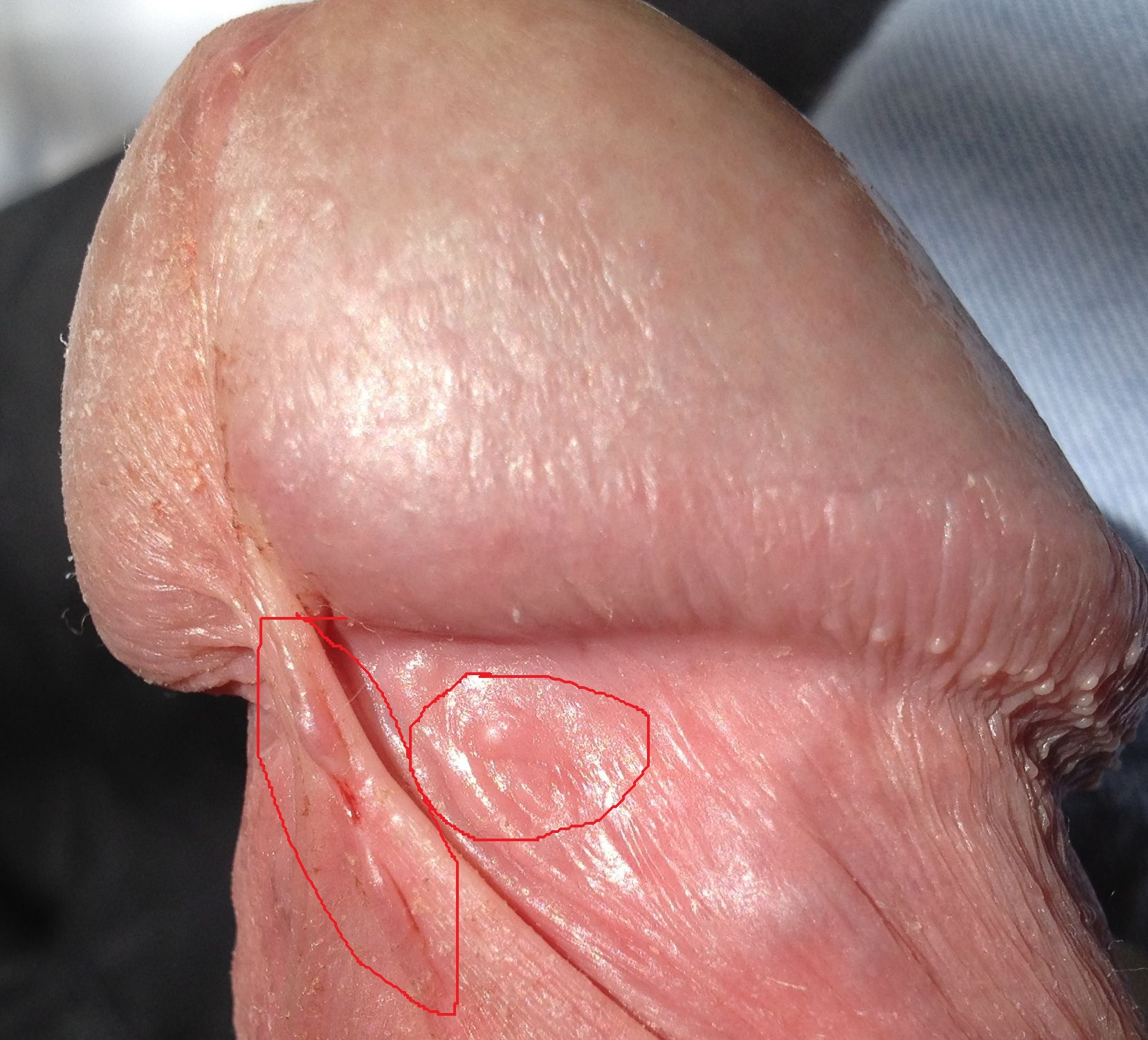 Bumps On Glans Penis 85