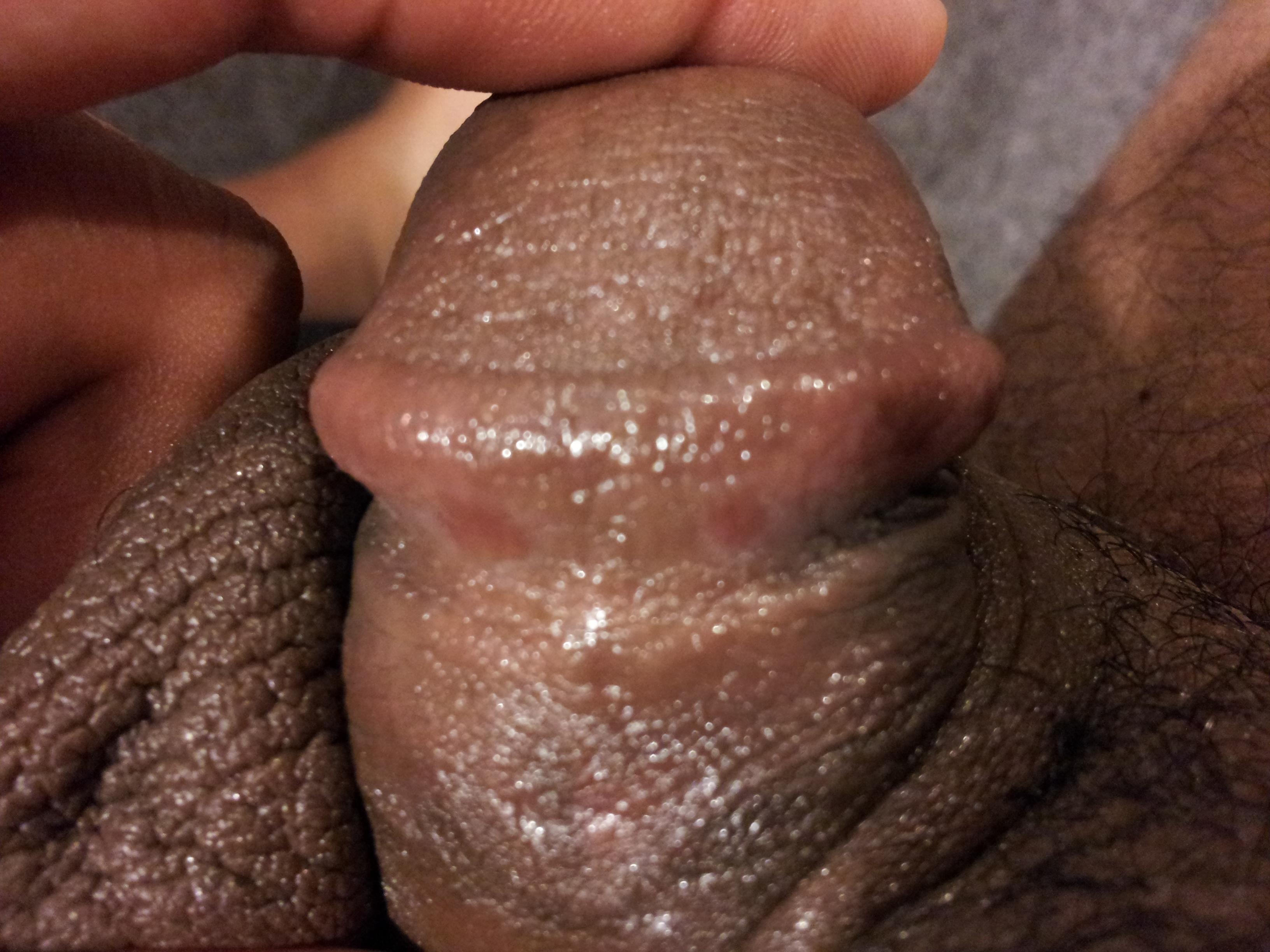 Dry Flaking Skin On Penis 111