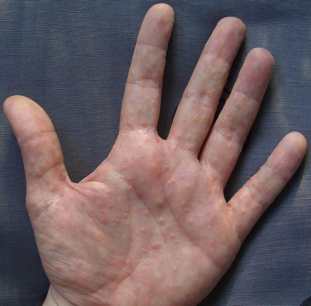 HD-Stress Rash On Hands – Ashleehusseyphoto