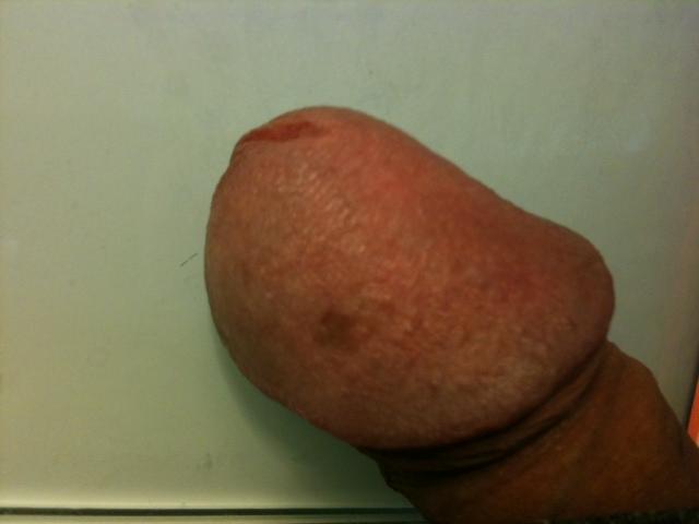 Black Spot On Tip Of Penis 44