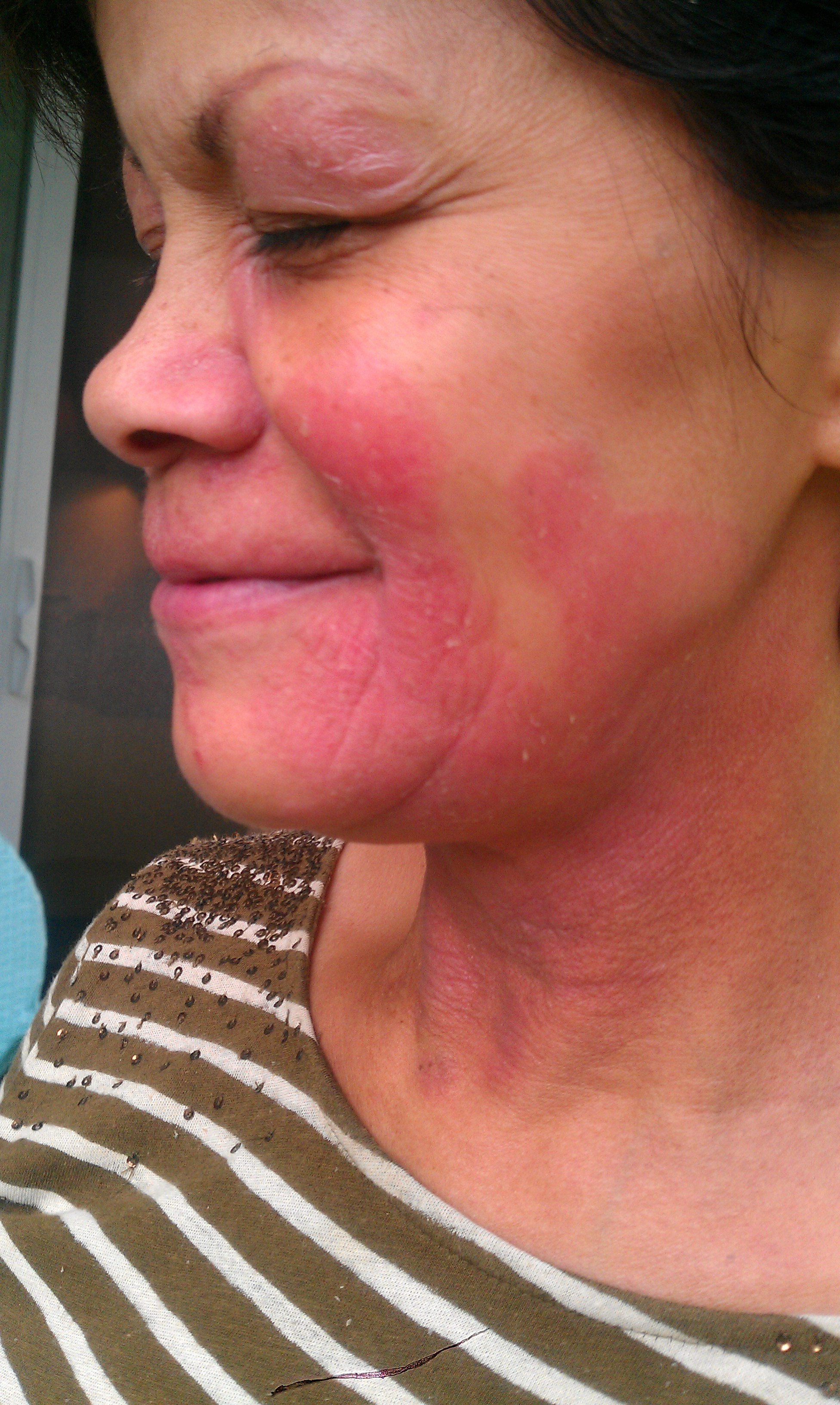 Allergic facial rash