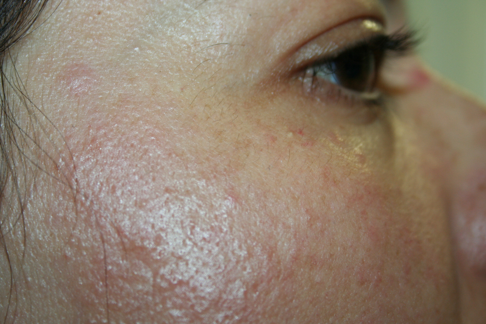 Pictures of Heat Rash On Forehead - #rock-cafe