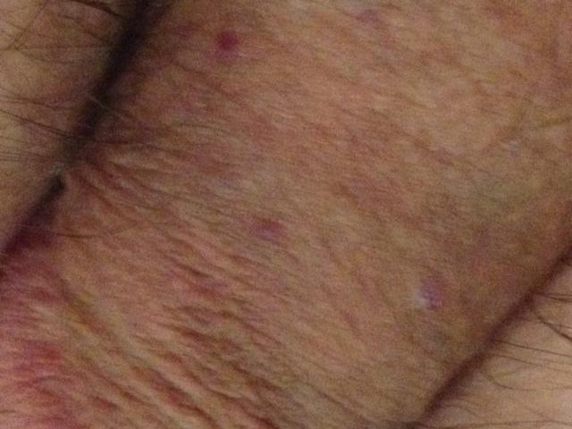 Dark Bumps On Penis 72