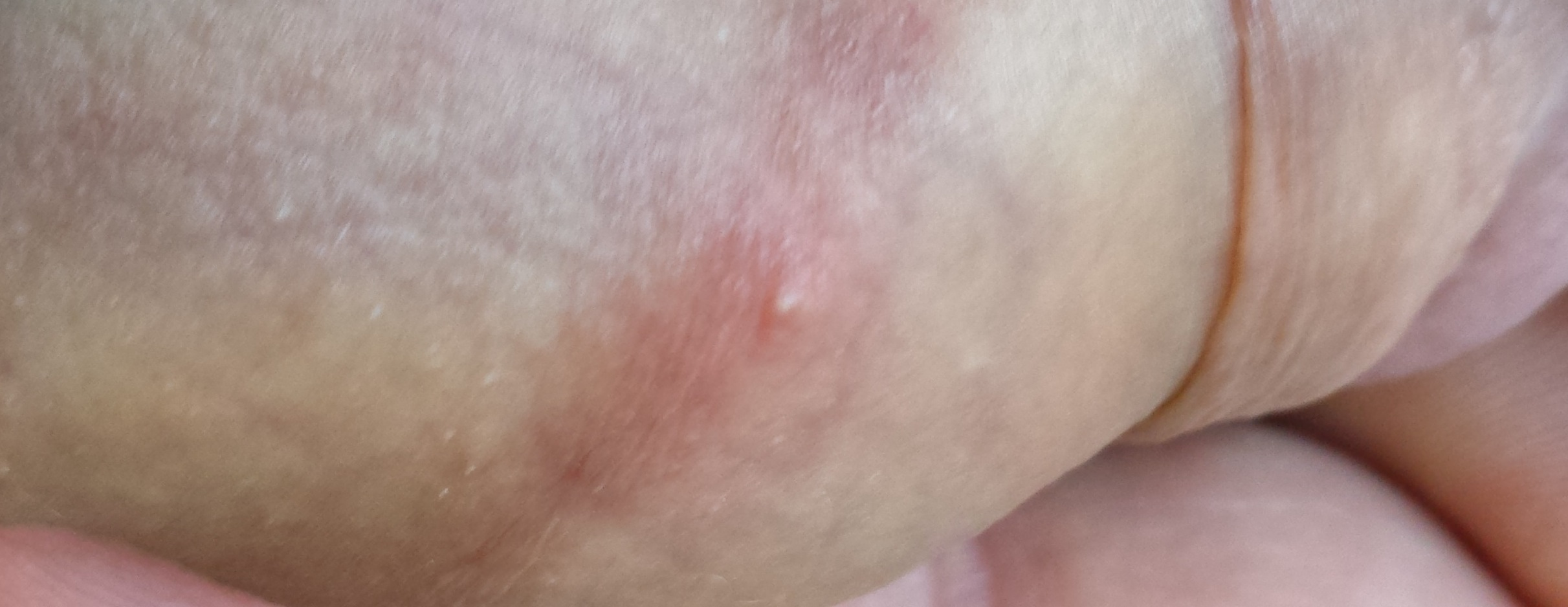Zit On My Penis 64