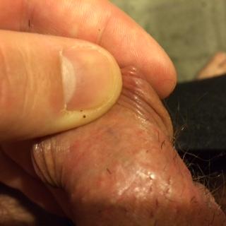 Vein On Penis Head 50