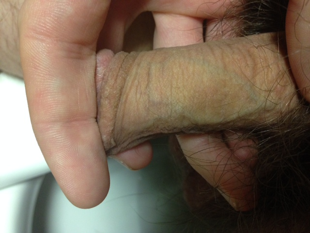 Bruise On Penis 29