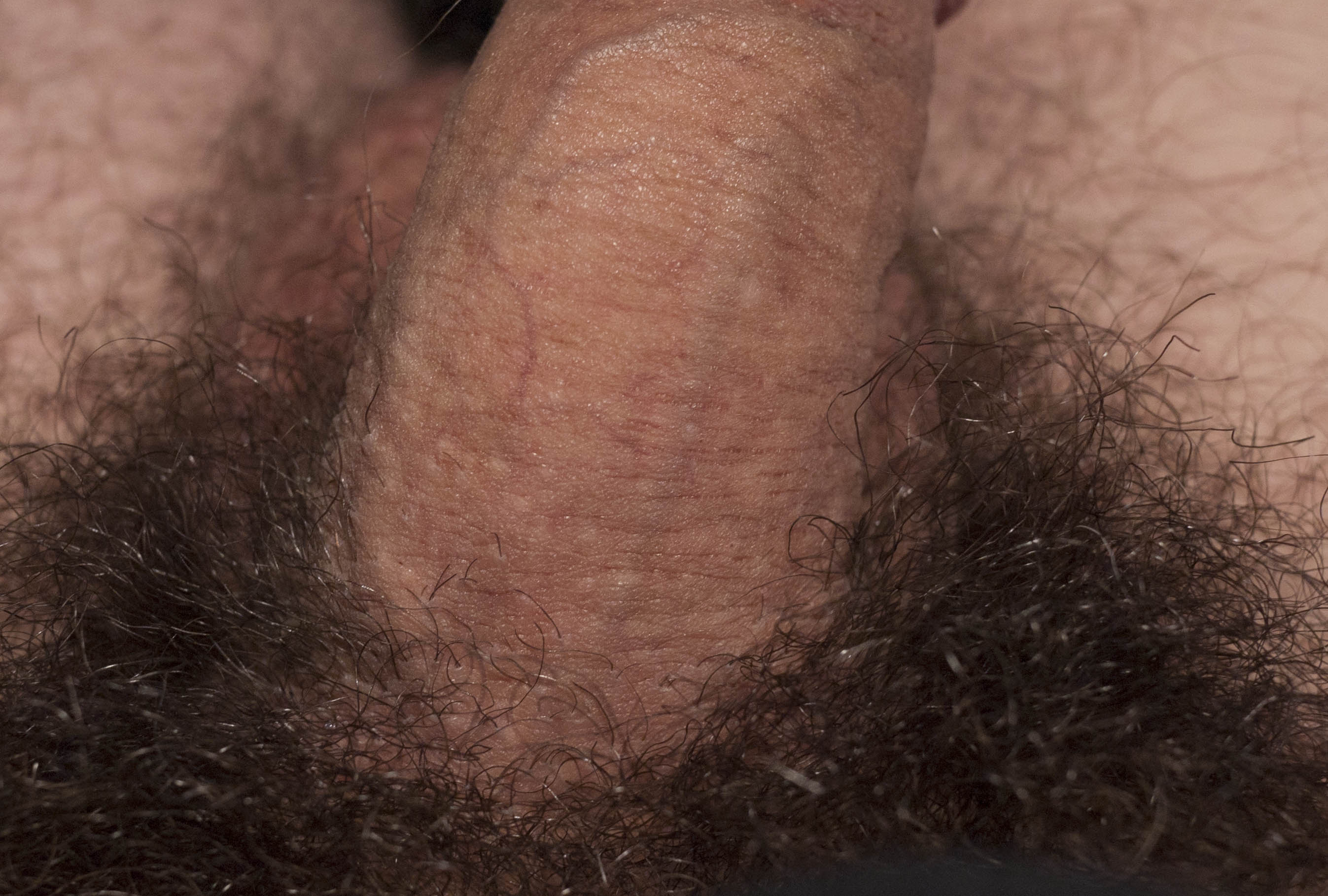 White bumbs on penis with you