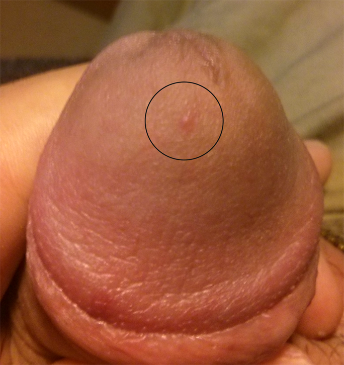Single Red Spot On Penis 60