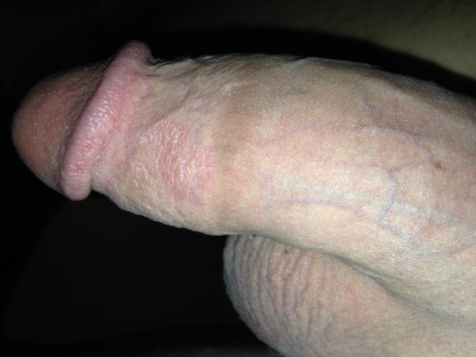 Rash on shaft of penis