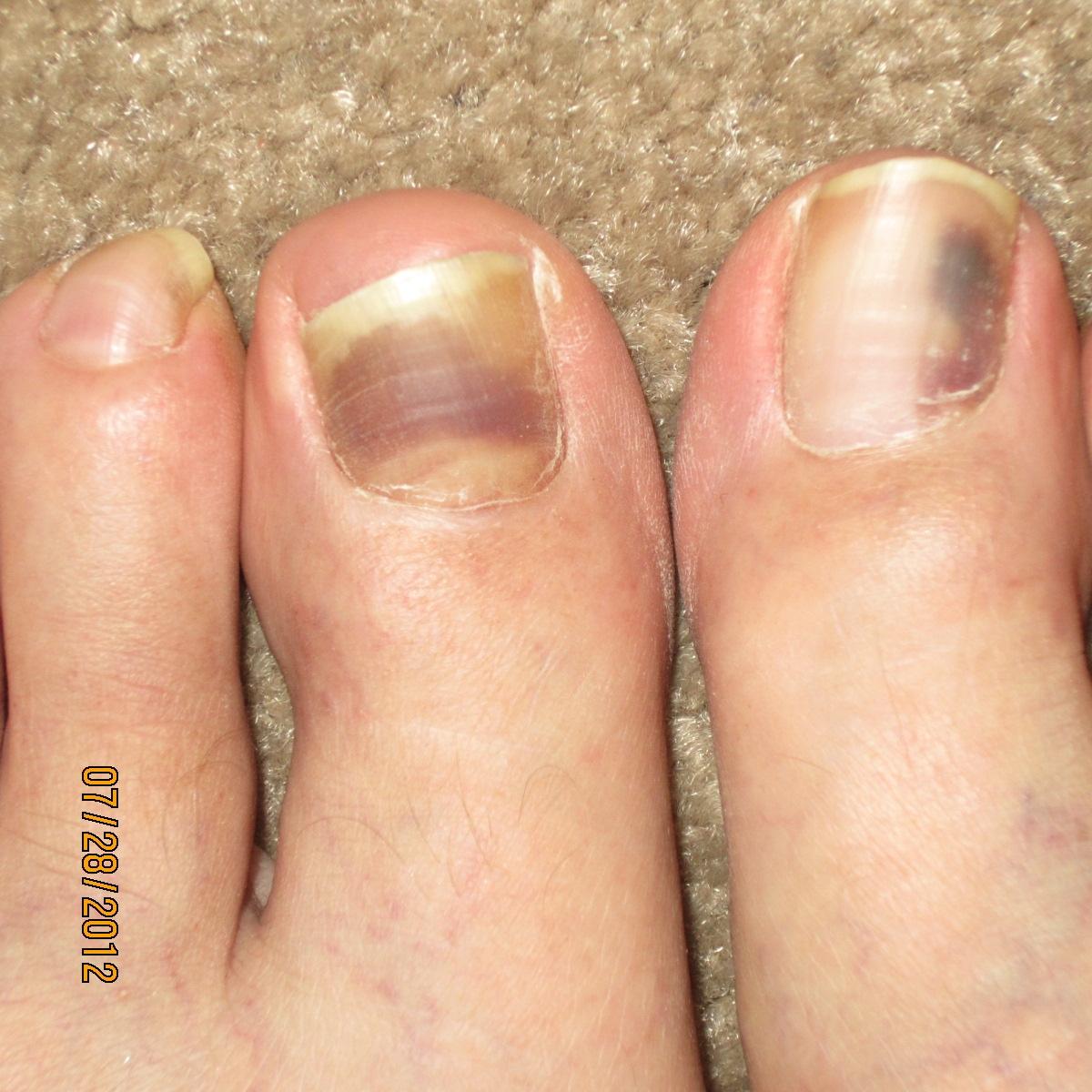 Yellow Nail Polish Toenails: White Toenail Discoloration From Nail Polish