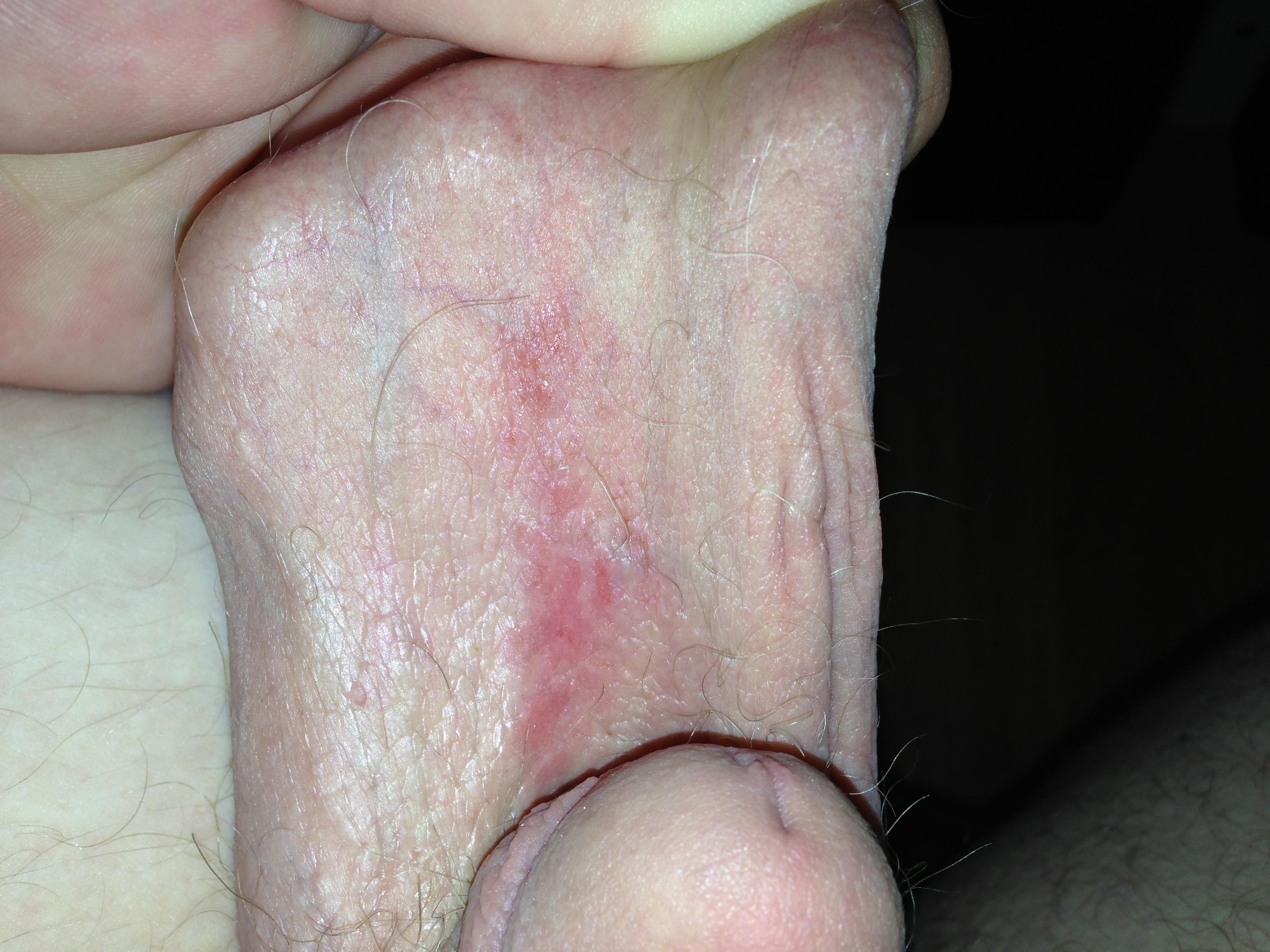 Itchy rash anus