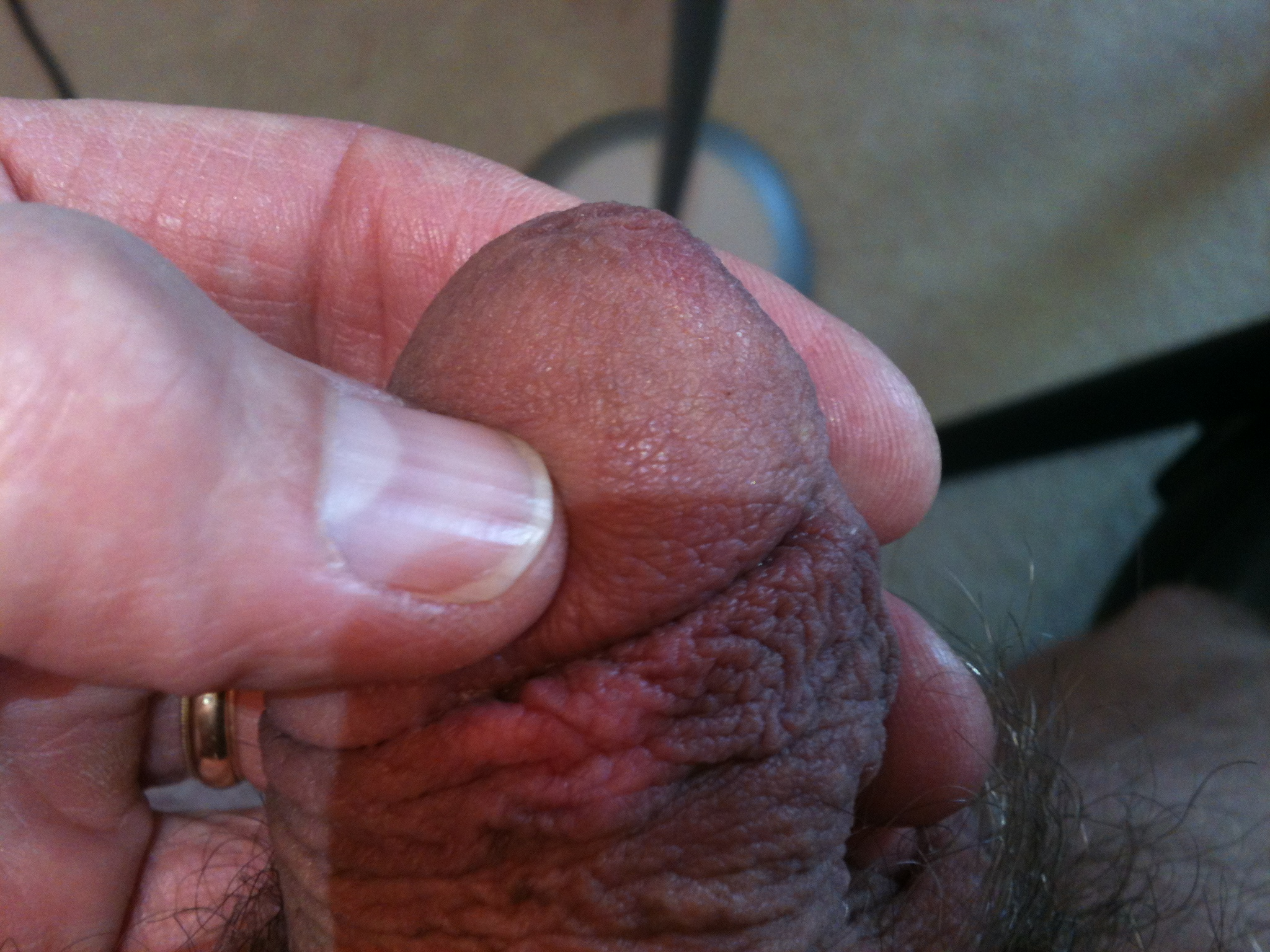 Tingling On Penis 74