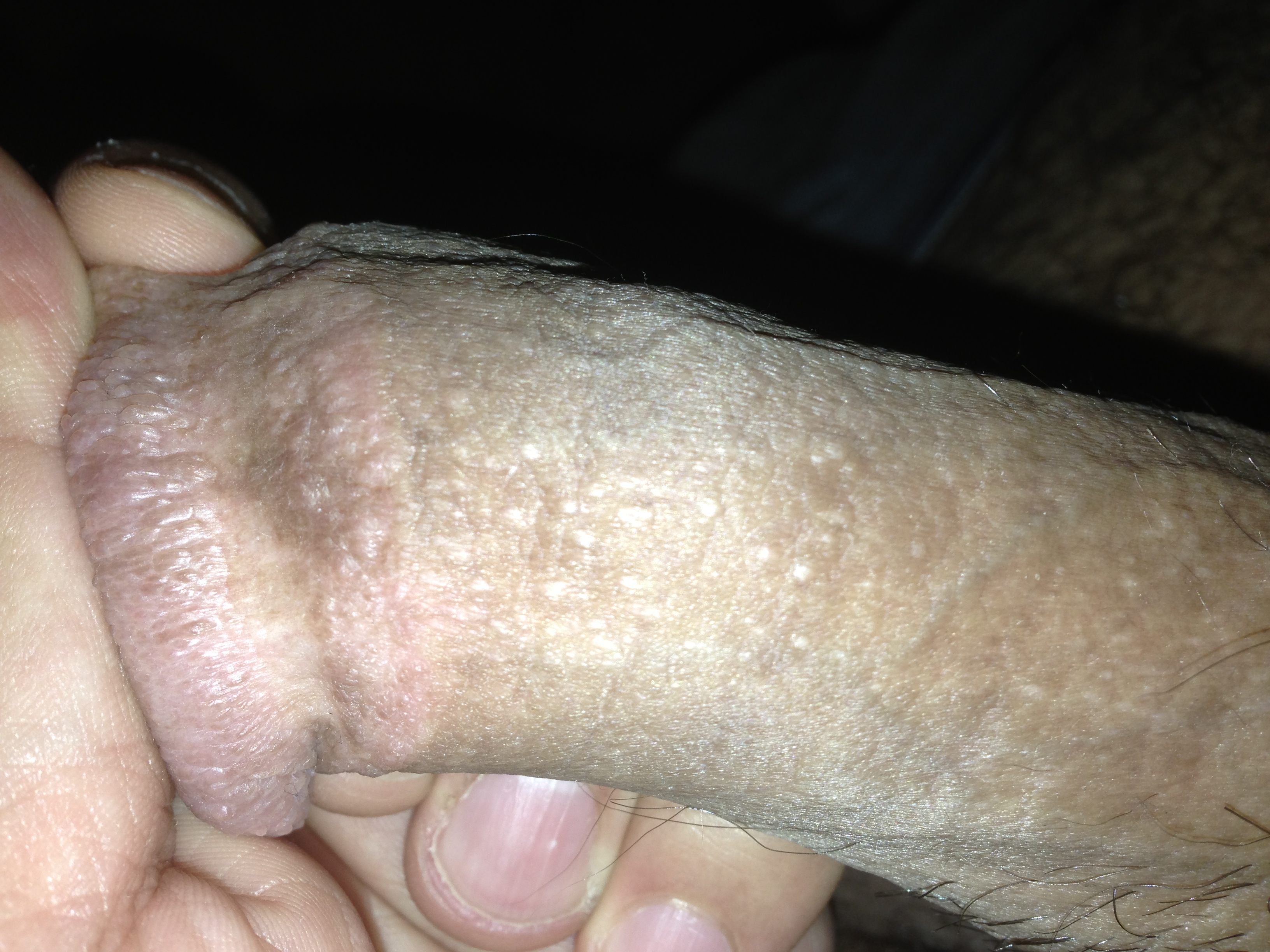 White spots on penis normal