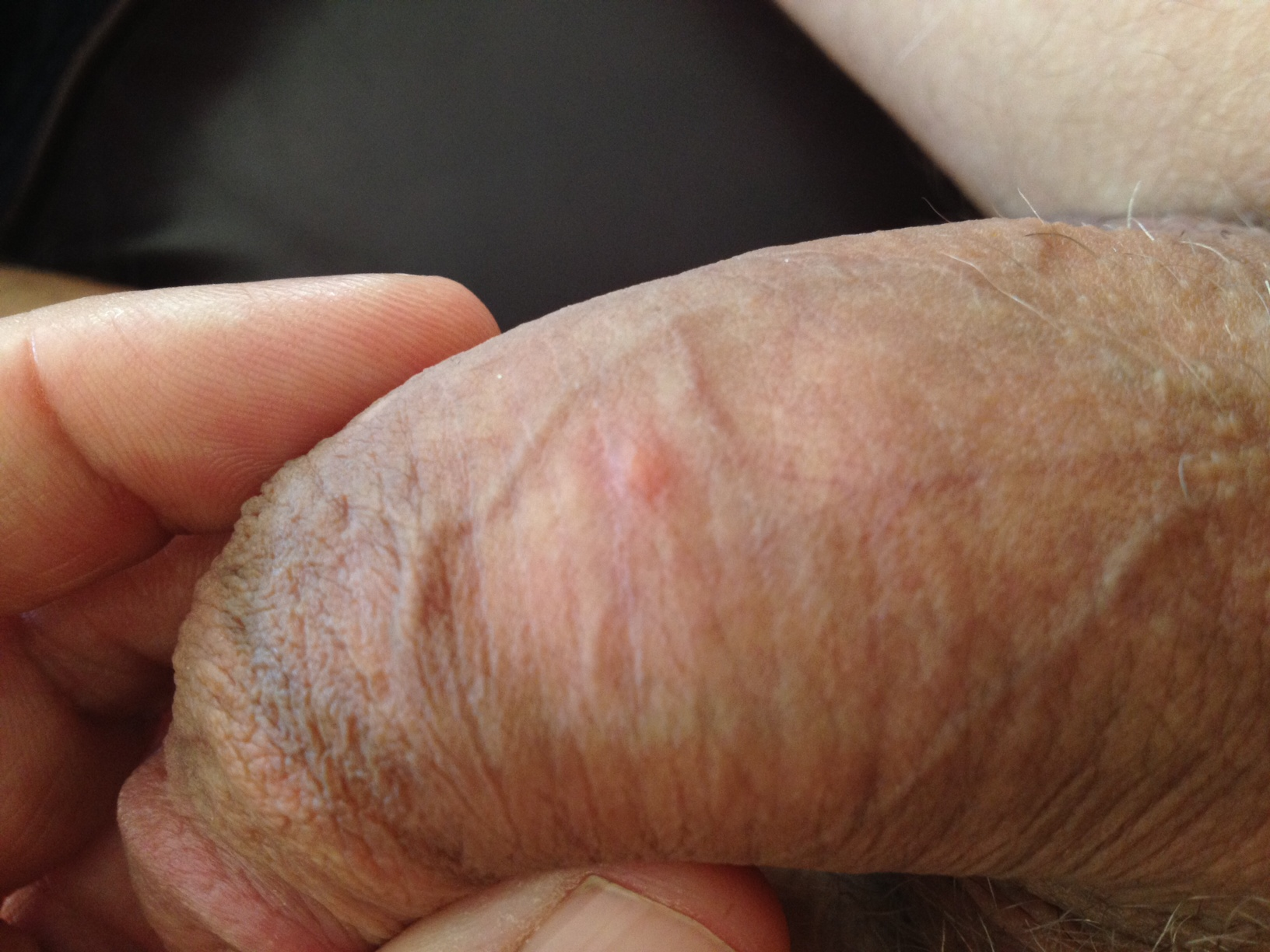 Small Red Bump On Penis 36