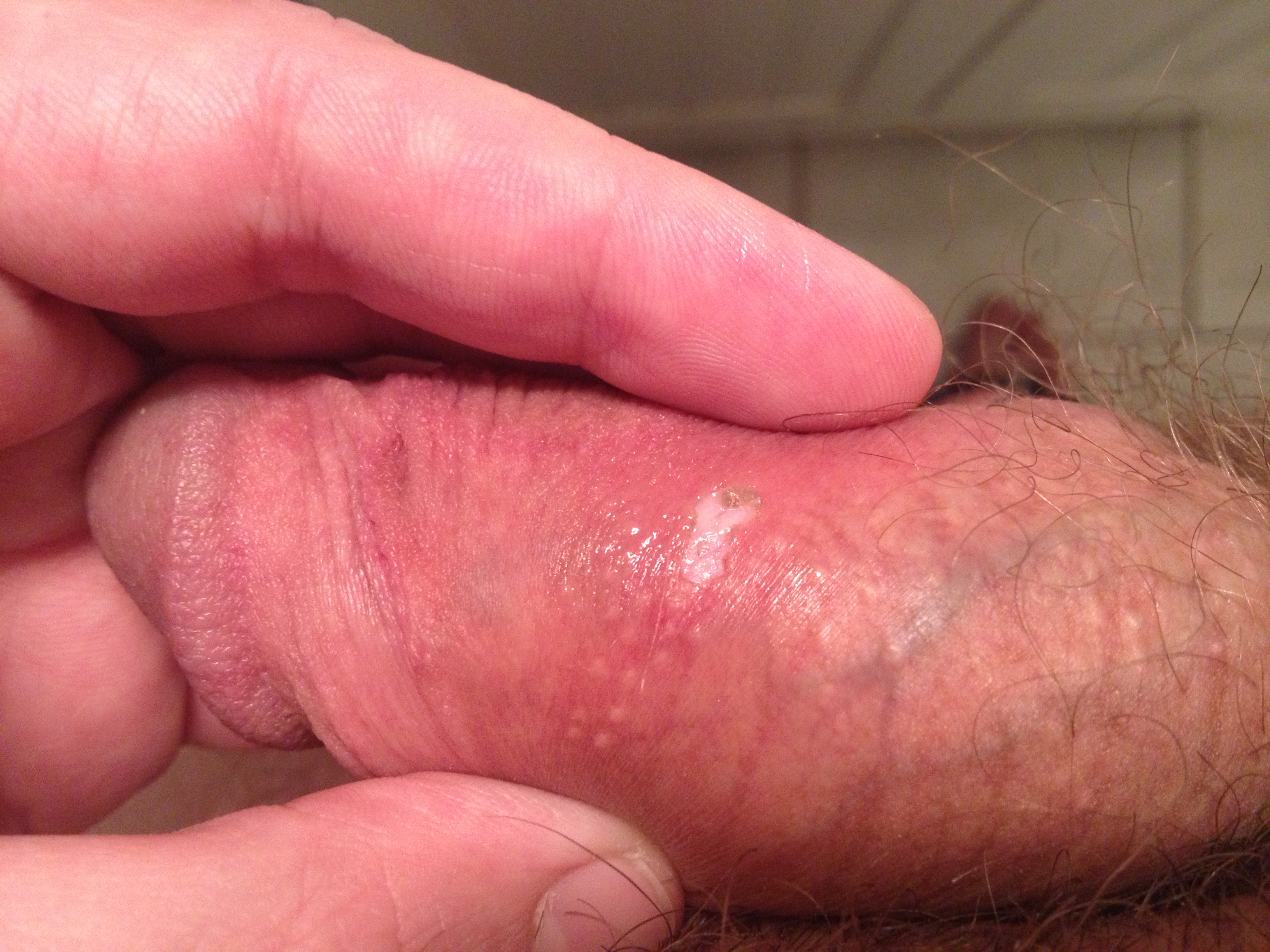 Is the tip of your penis sore, red or itchy