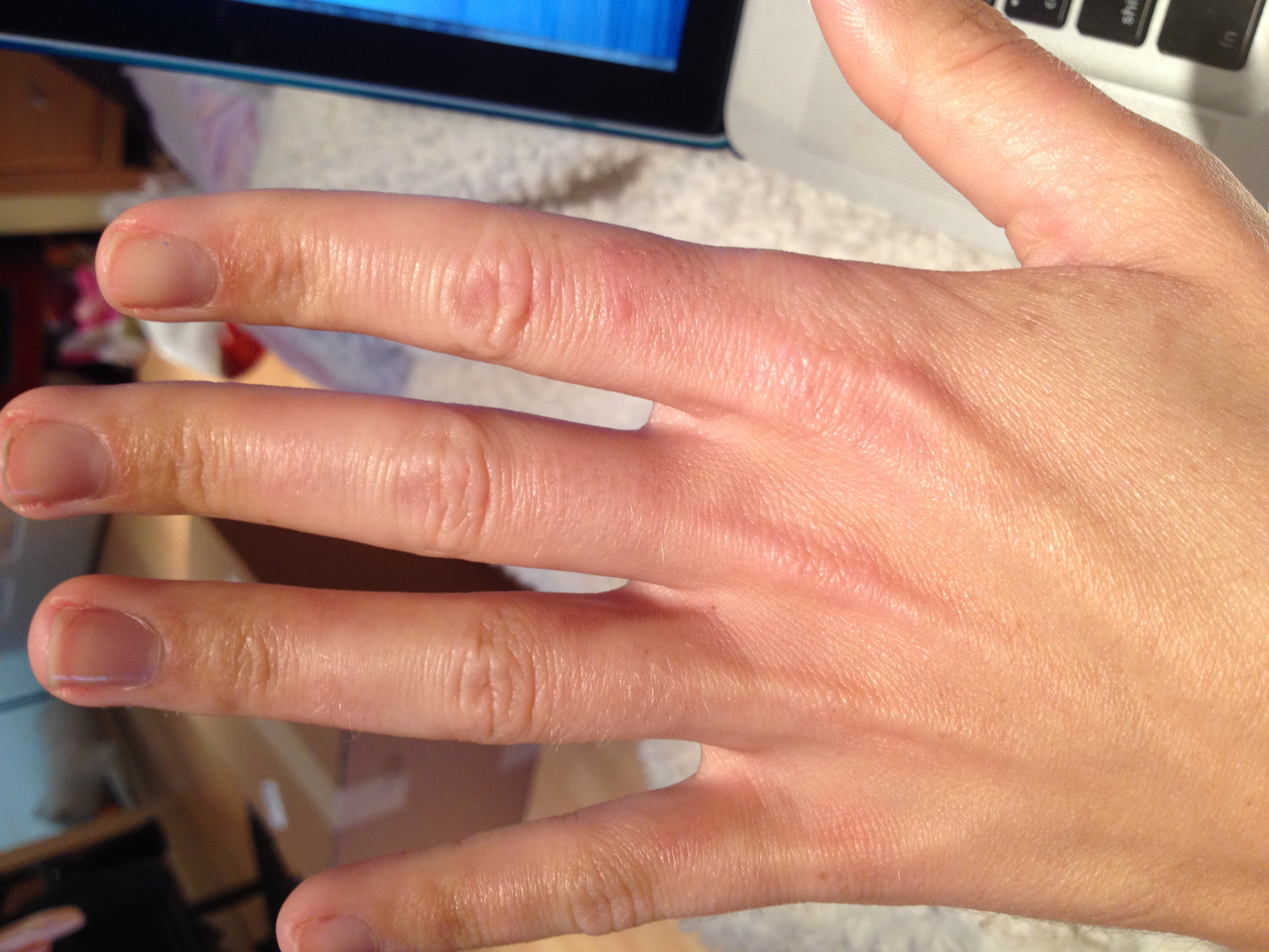 I have had a rash on the back of my hand (mostly my right ...  I have had a ra...