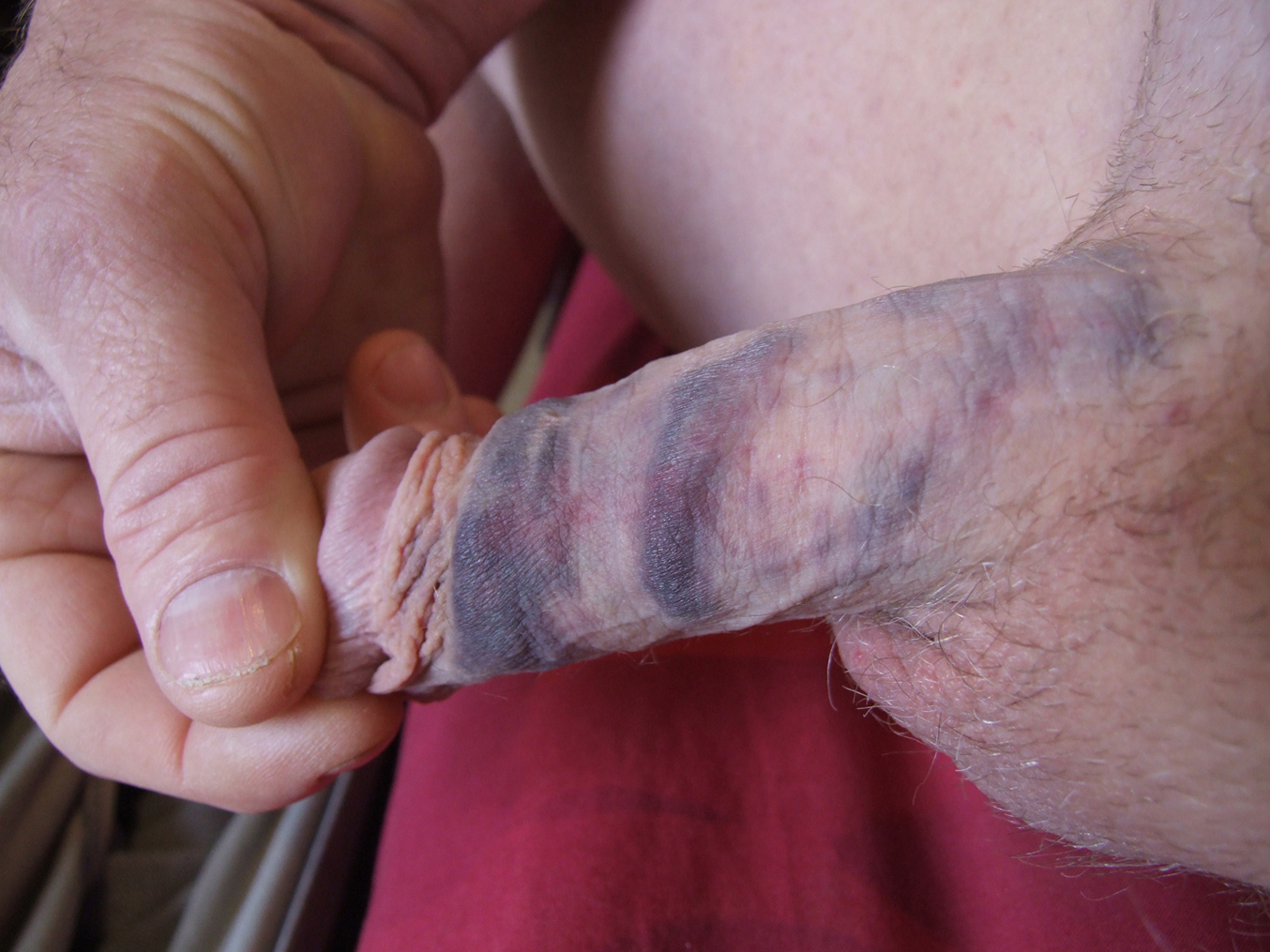 Bruise On Penis 99