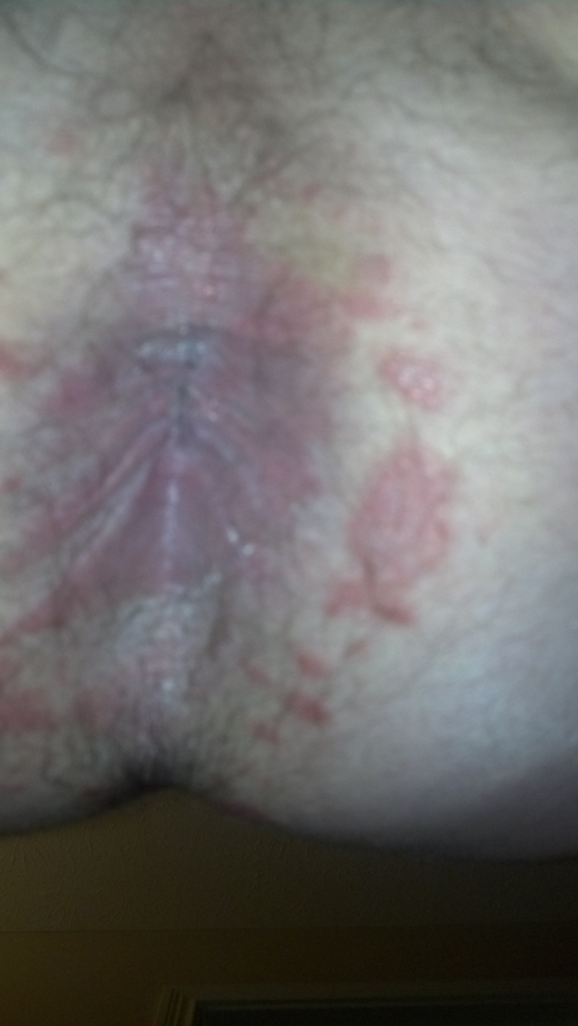 Excellent question symptoms itching anus