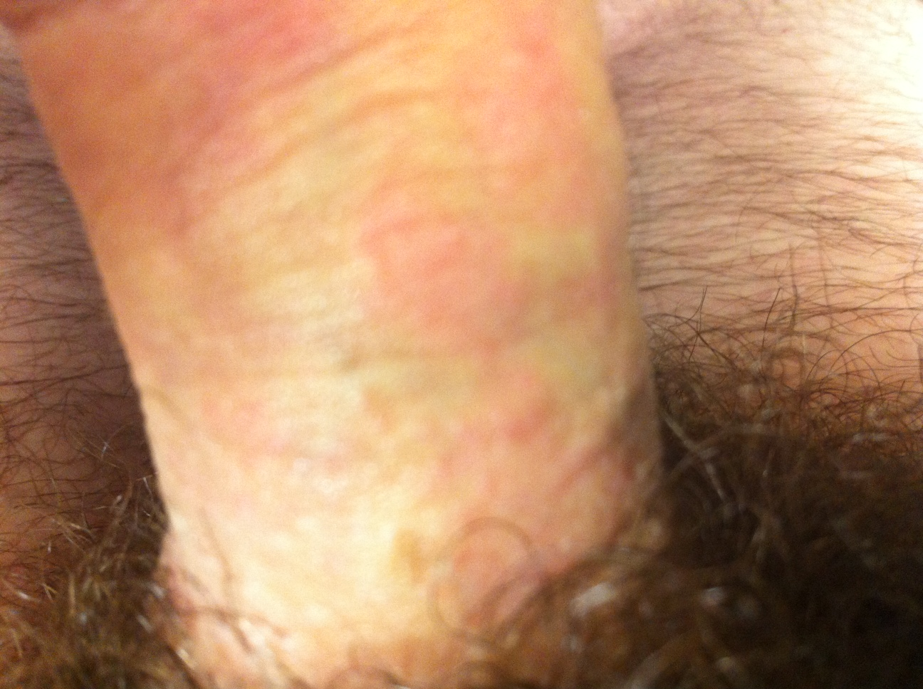 Rash on penis from sex