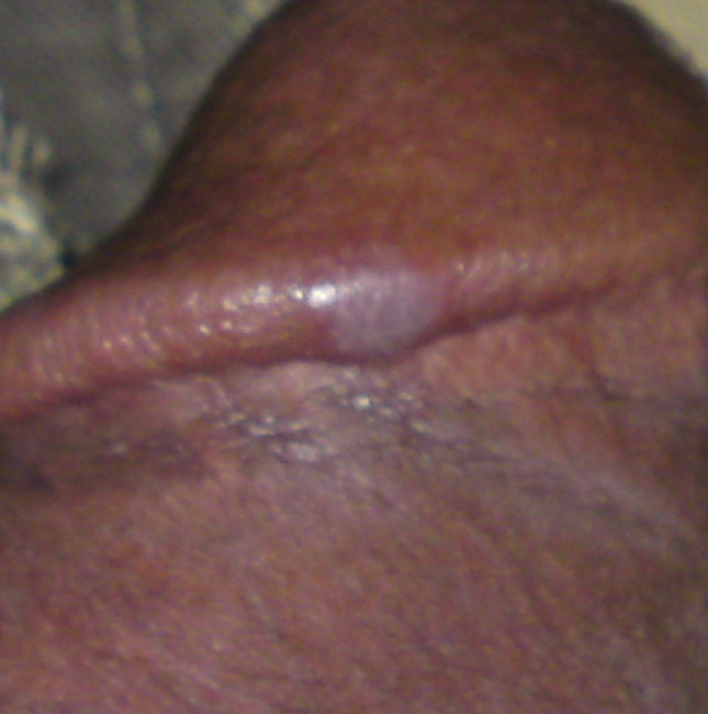 White Bump On Head Of Penis 3