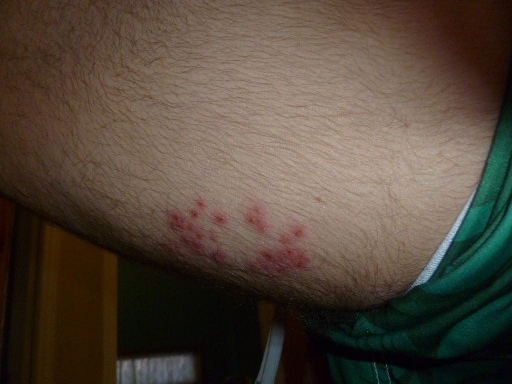 Did I get shingles or a Hot tub rash (Pseudomonas ...