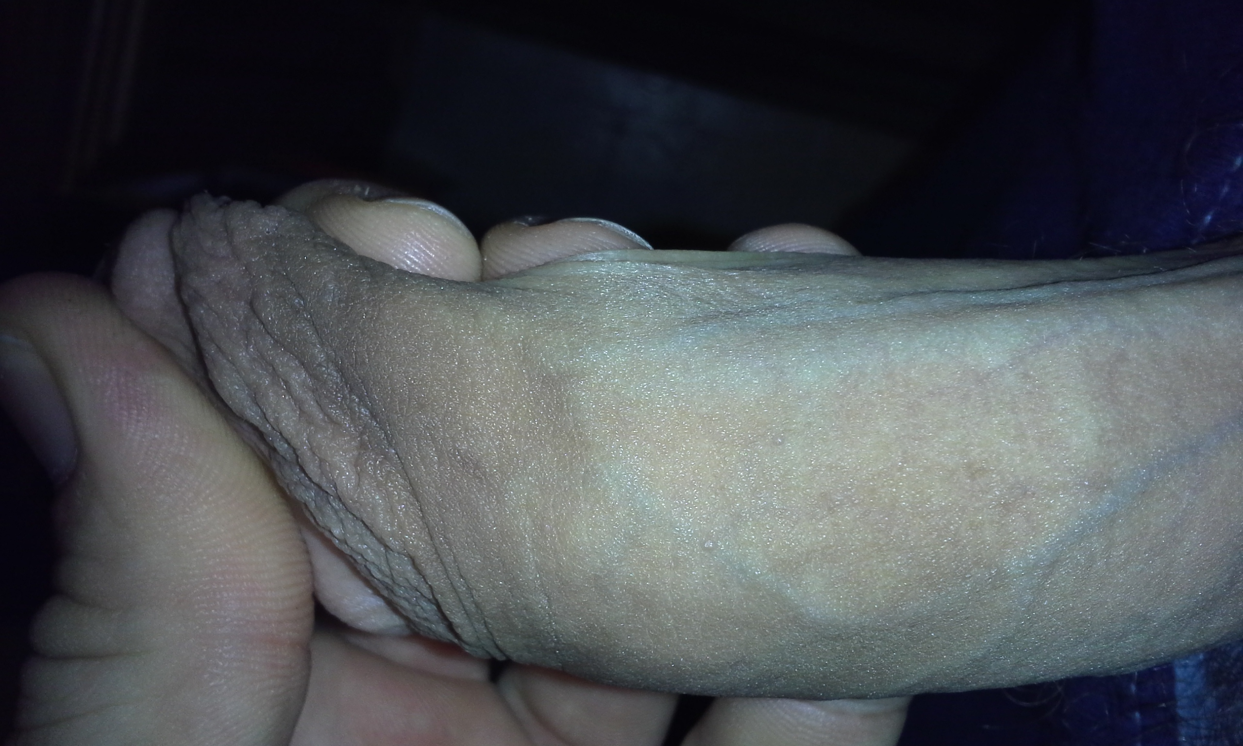Pictures Of My Penis 106