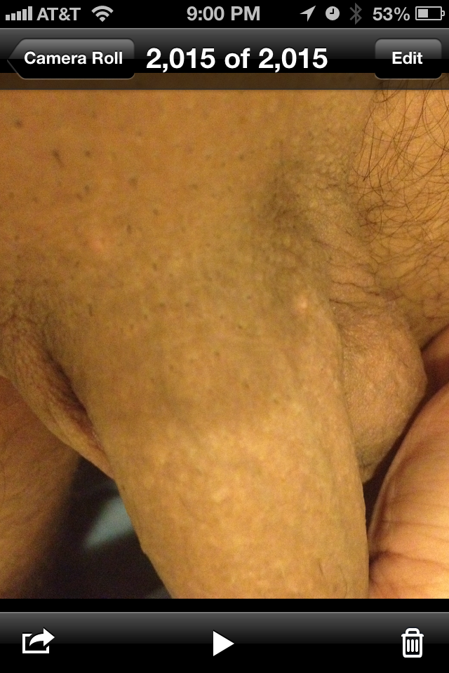 Shaved Male Genitals 120