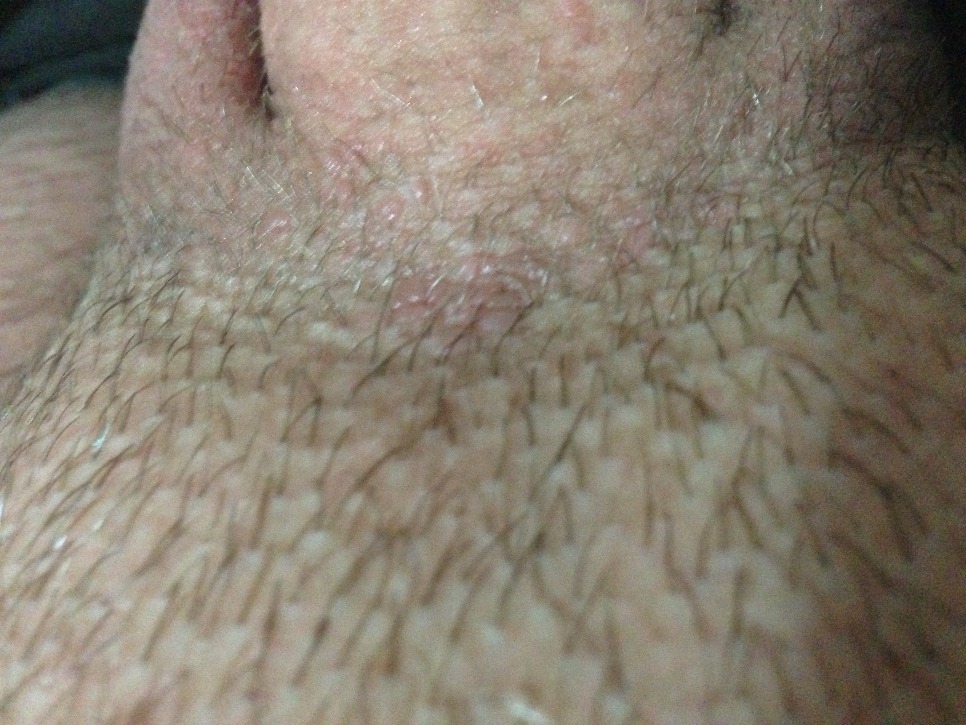 Bumps At The Base Of Penis 94