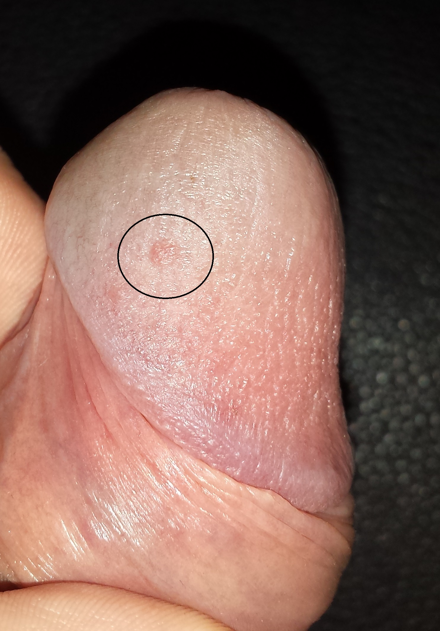 Topic yeast infection on penis head something