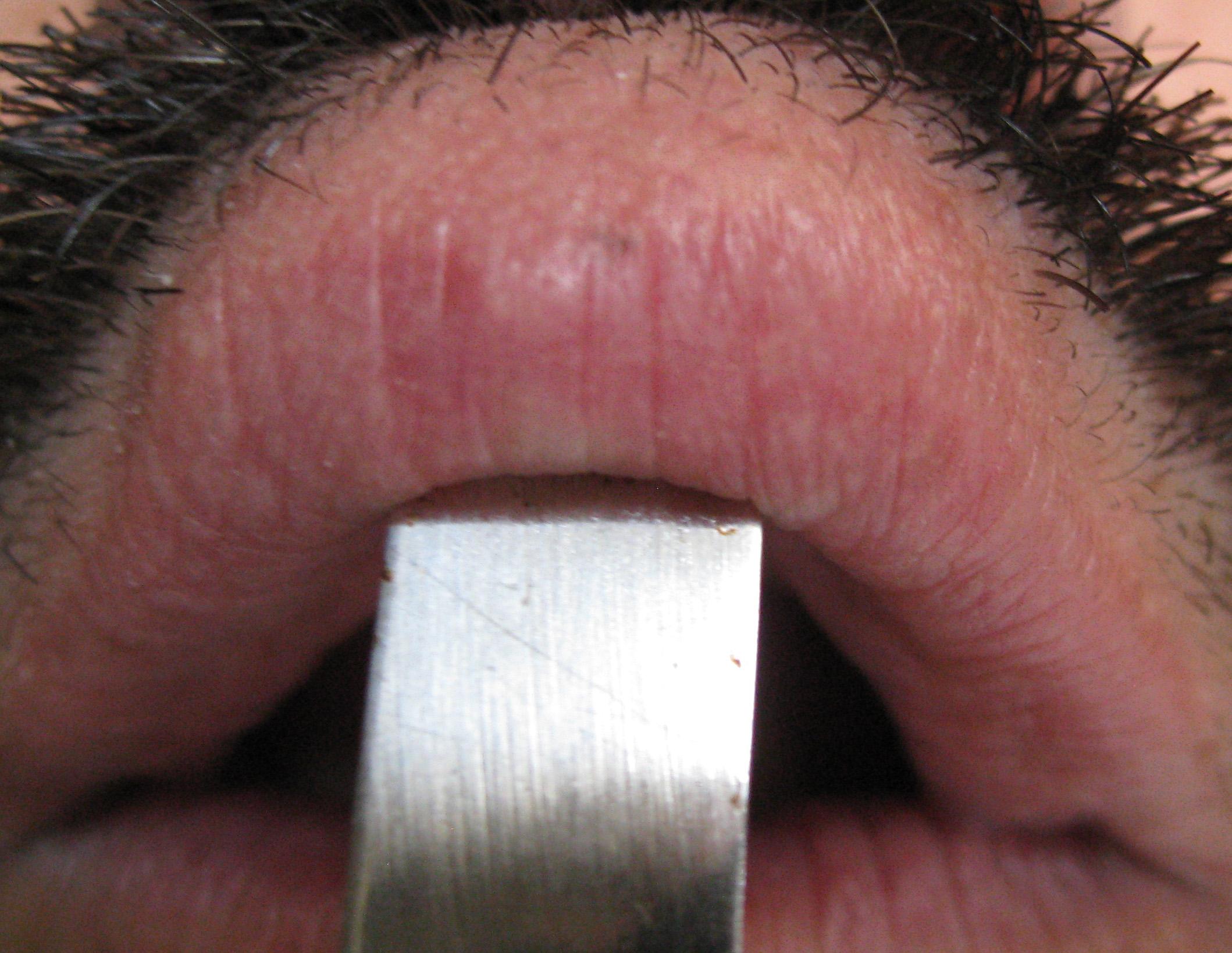 100+ Black Spot On My Lip – yasminroohi