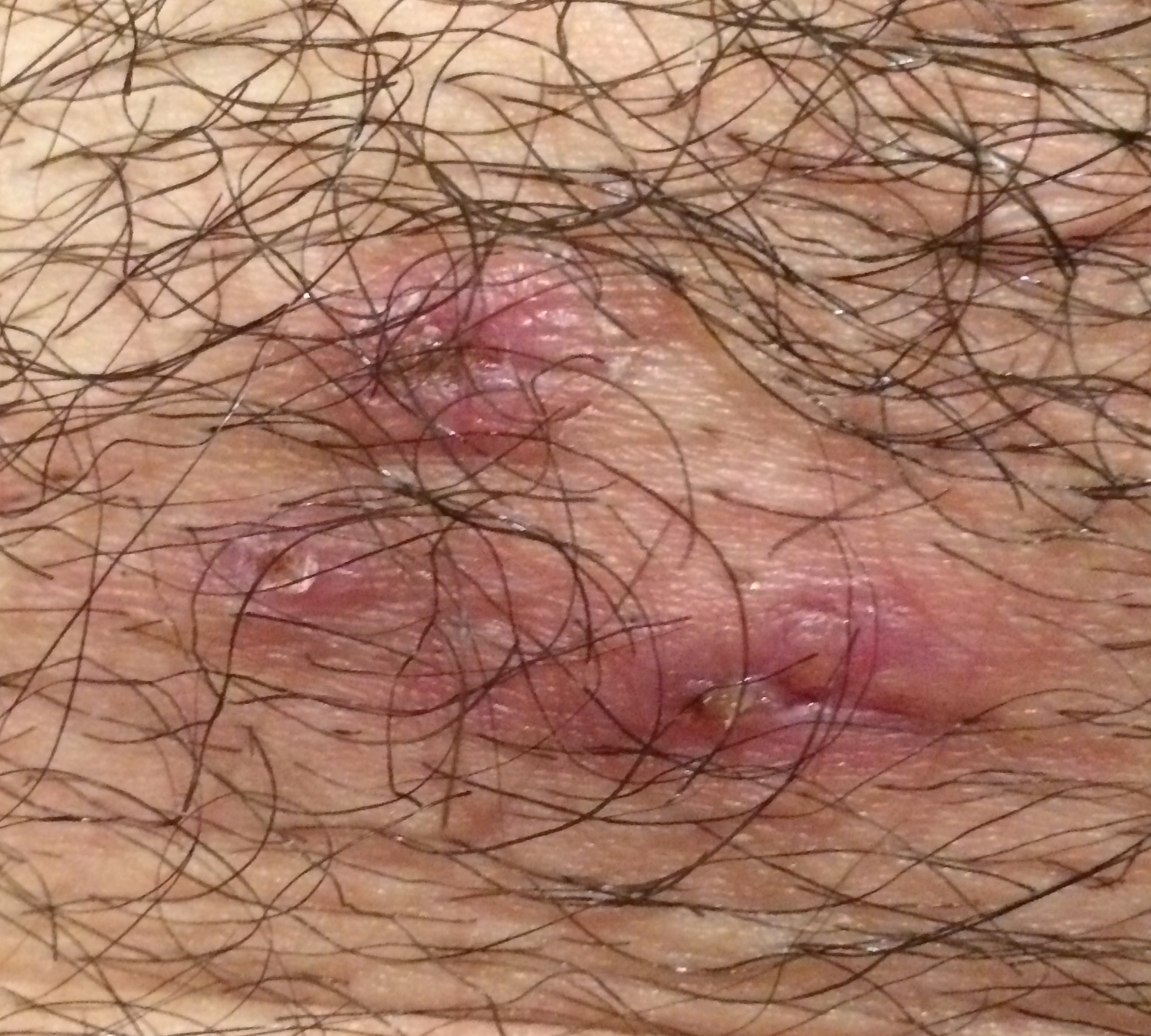 Male Hairy Pubic Area 110