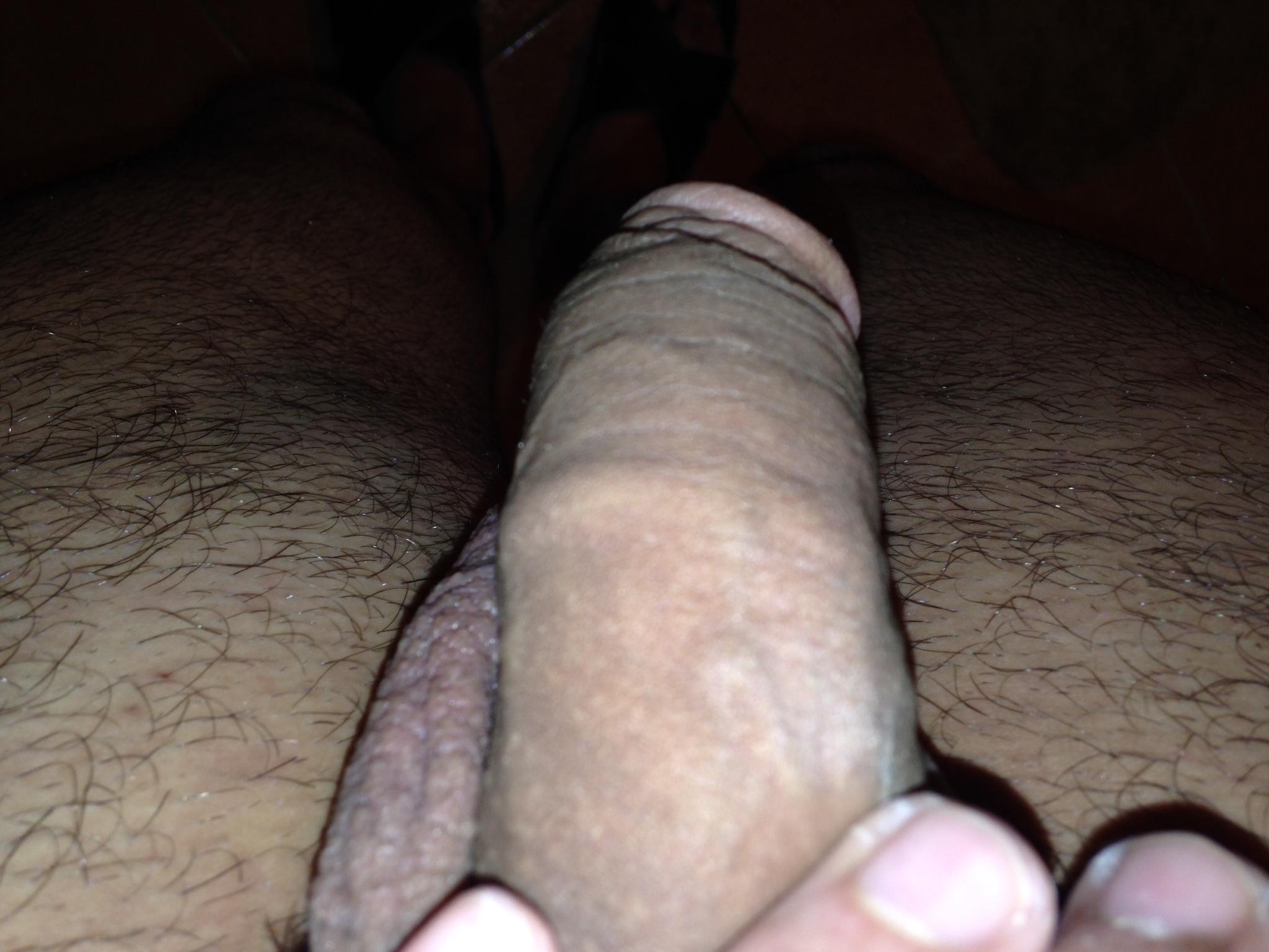 Swollen Veins On Penis 89