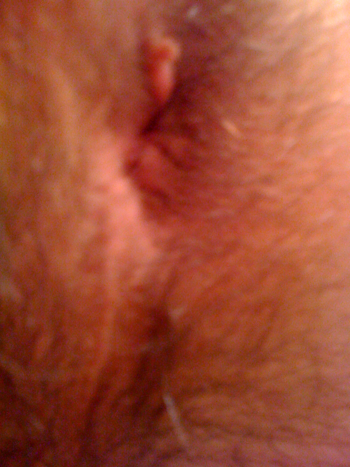 Lump coming out of anus