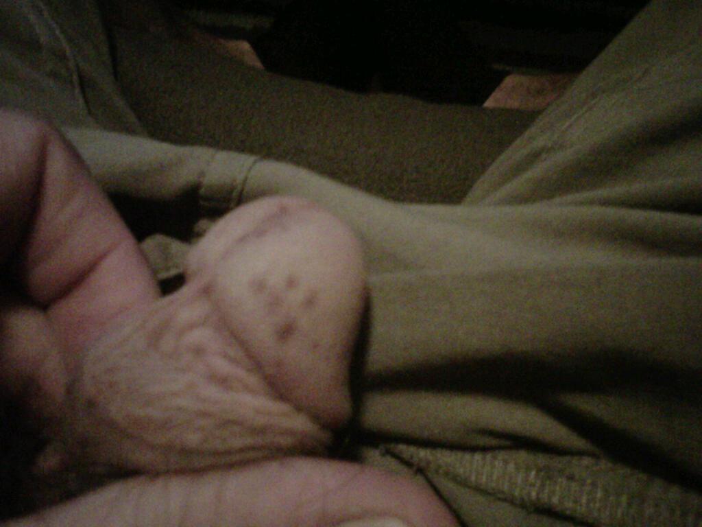 Black Spot On Tip Of Penis 117