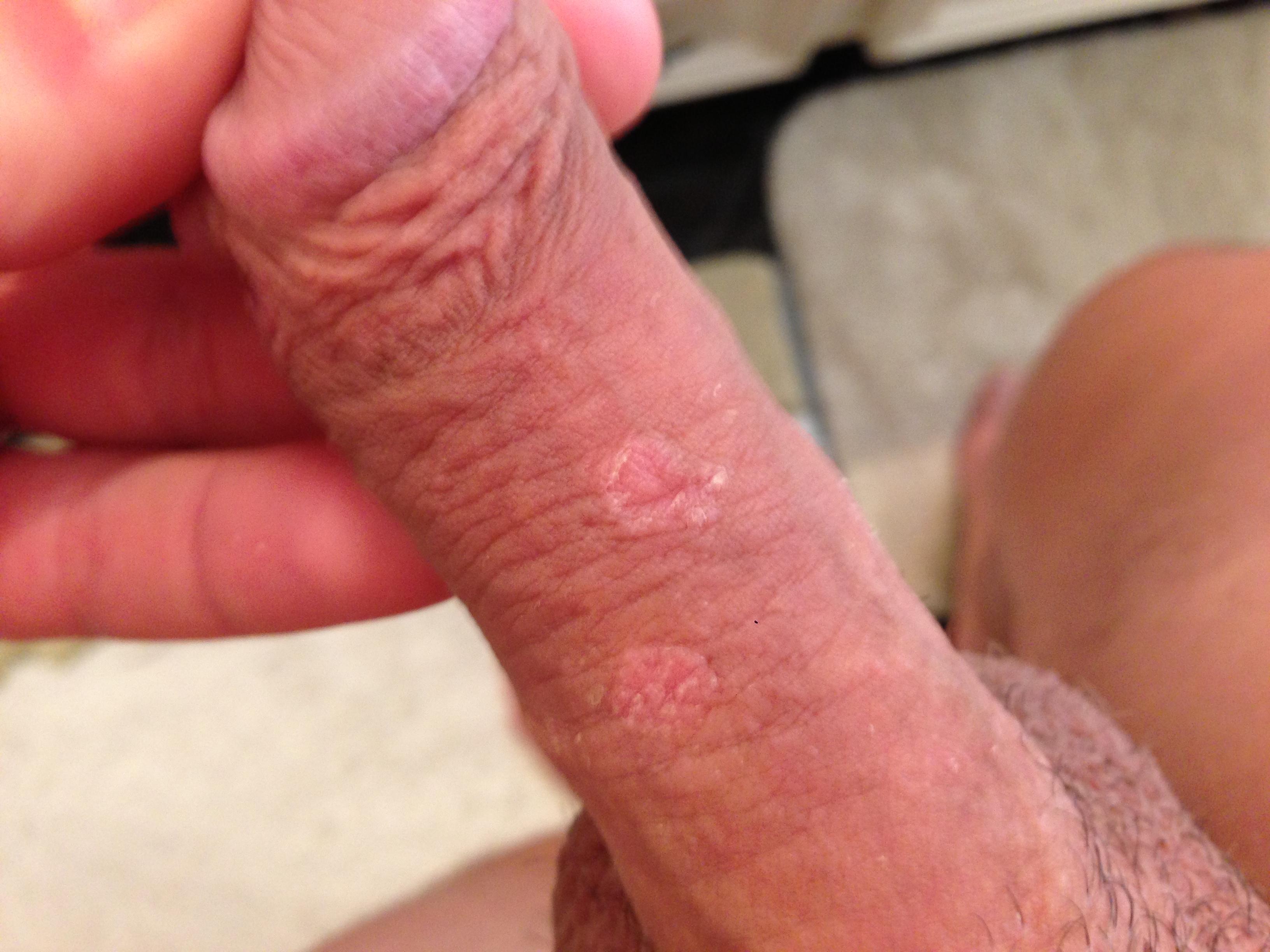Rash on penis after sex