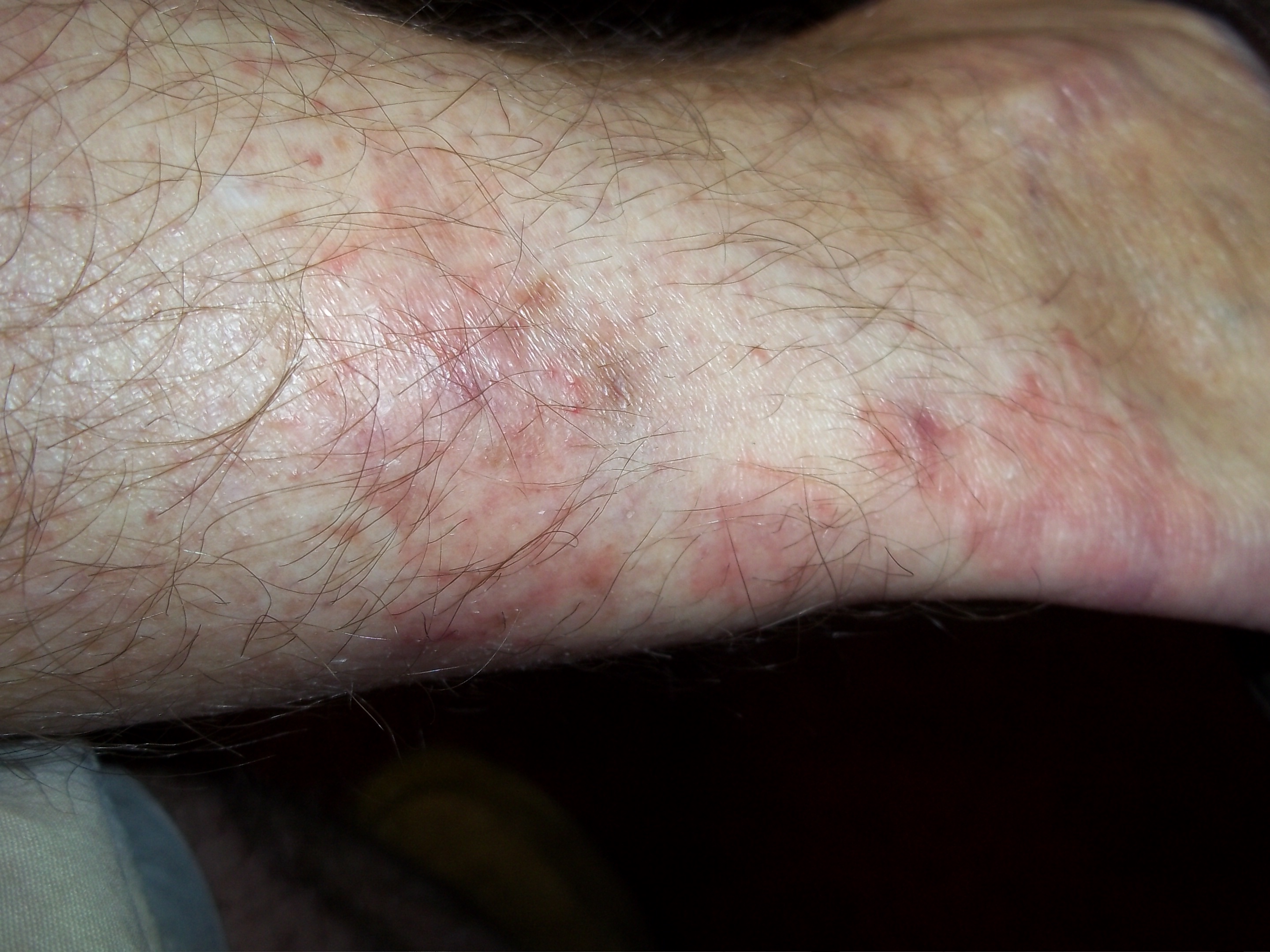 Ankle Rash Images - Reverse Search