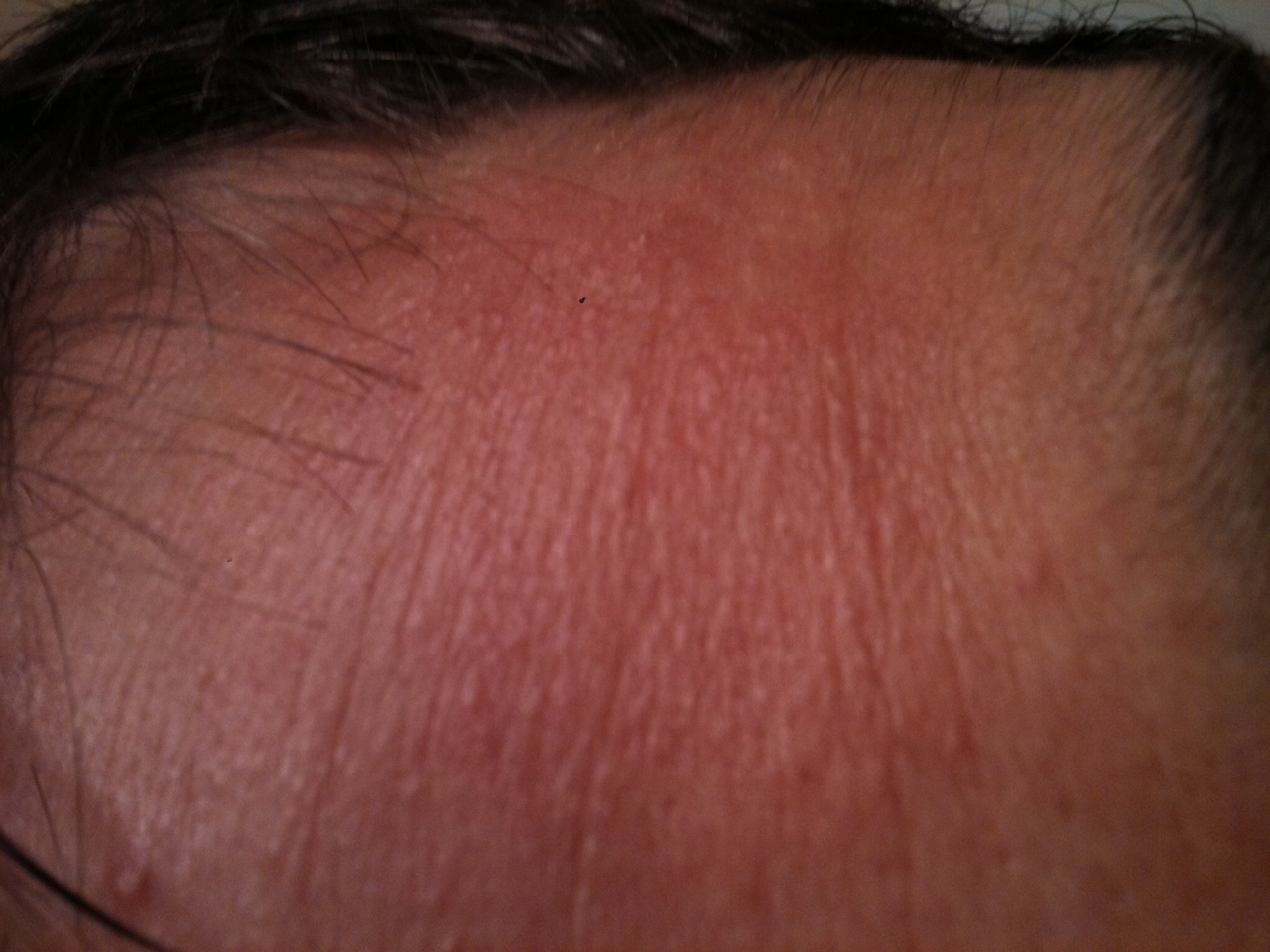 picture of penis rash jpg 1200x900