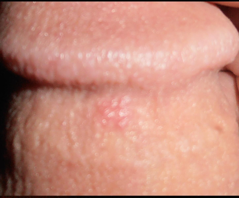 friction rash on penis jpg 853x1280