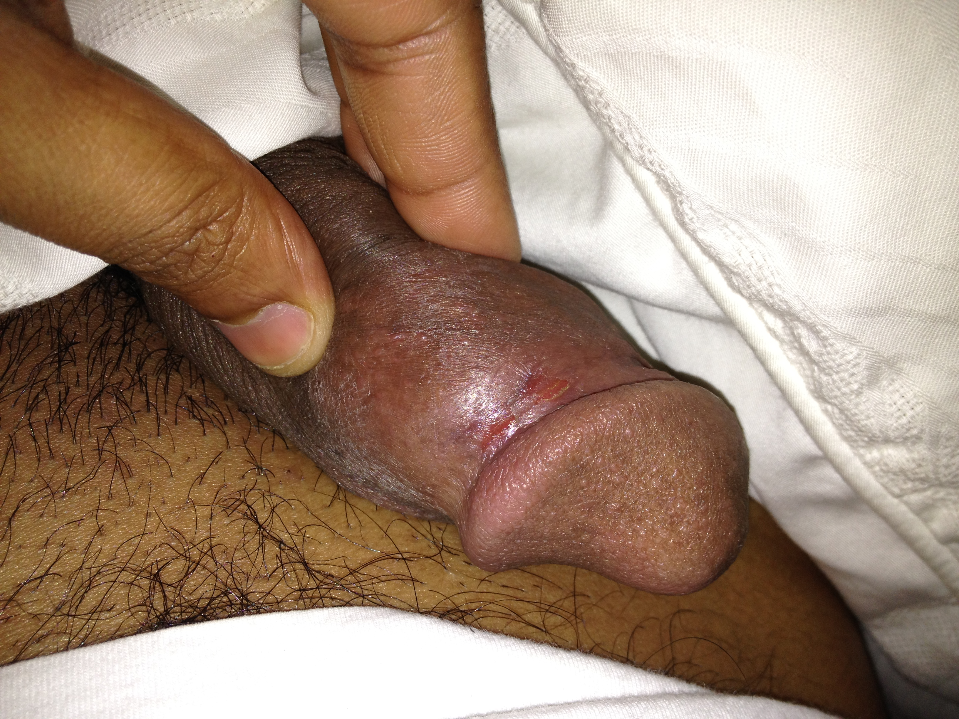 Small cut on penis