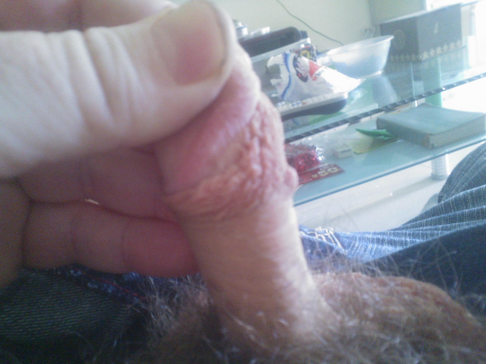 Bulging Veins In Penis 88