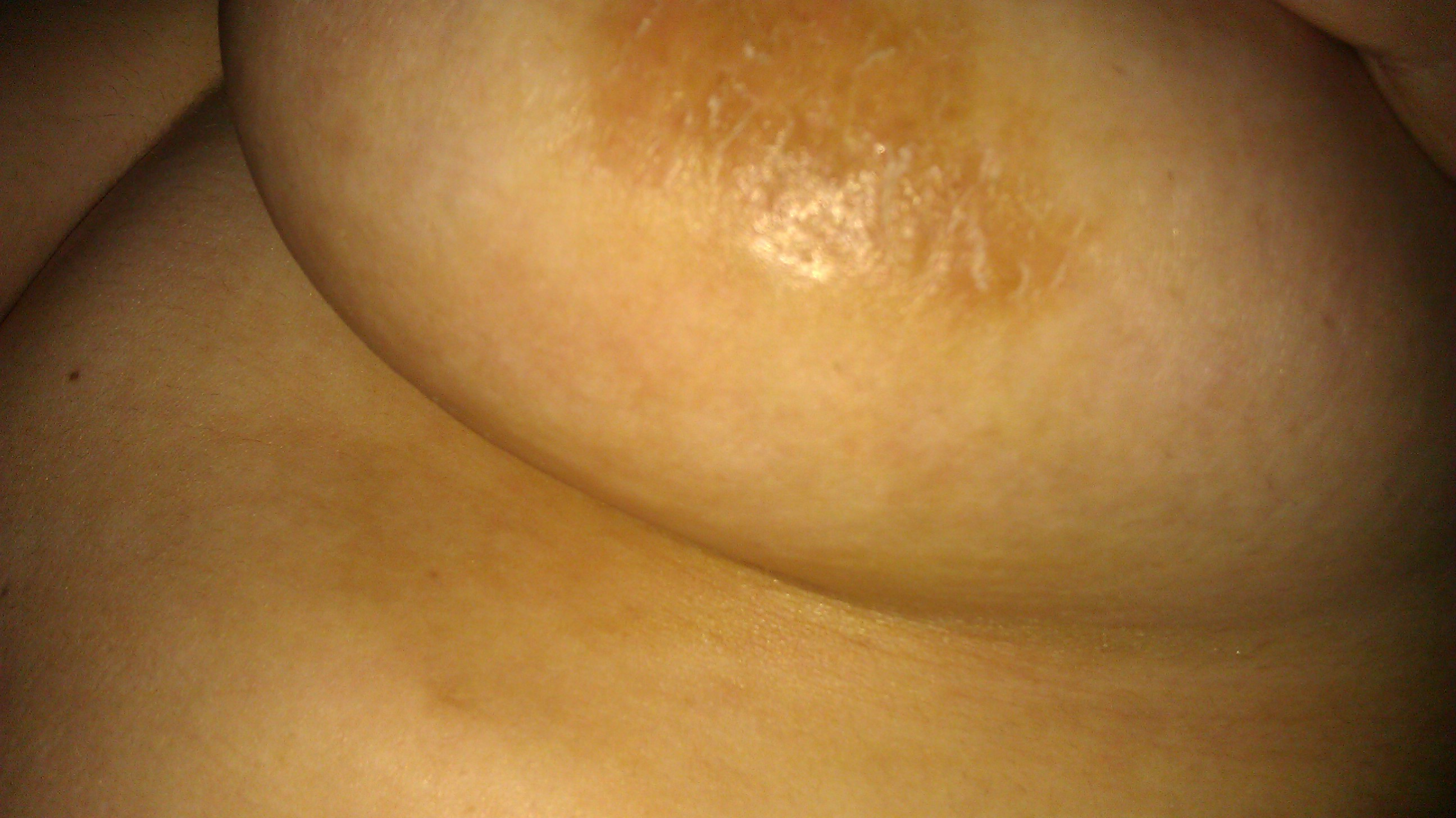 itching breast nipple